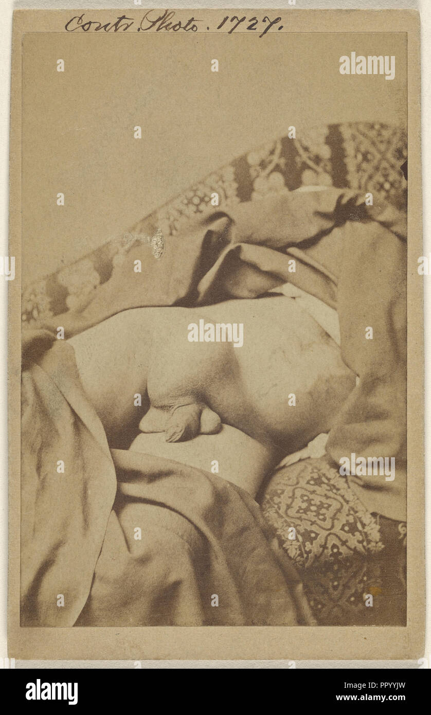 Diseased undescended Testes with Hydwelle; American; 1862 - 1872; Albumen silver print - Stock Image