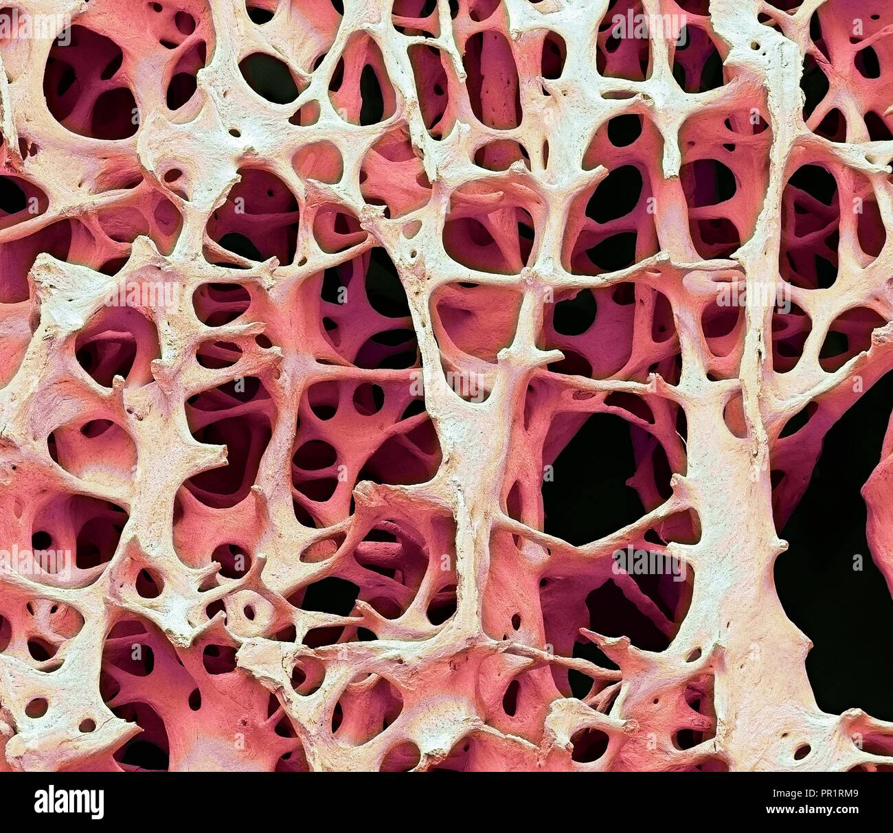 Compact Bone Tissue High Resolution Stock Photography And Images Alamy