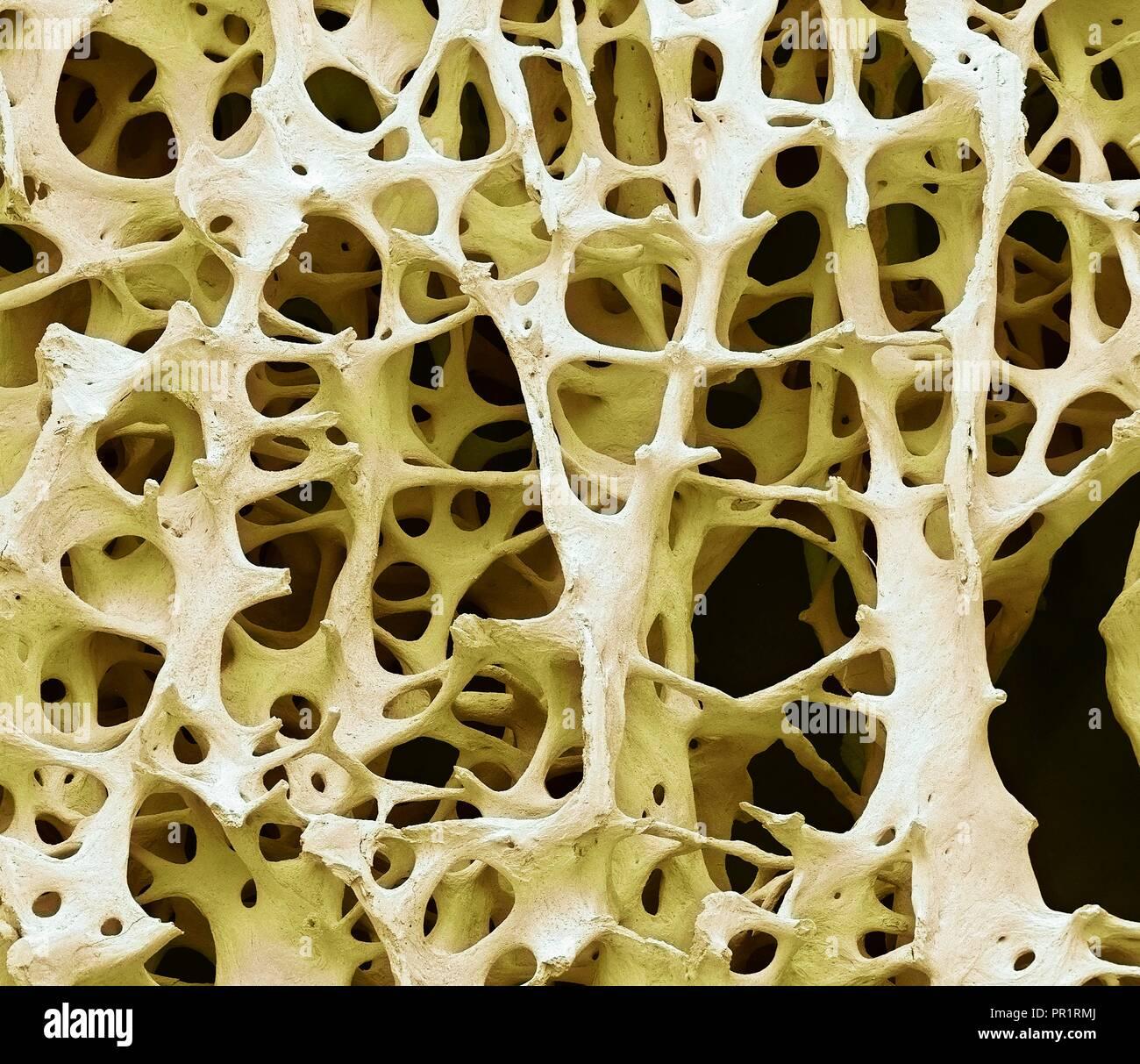 Spongy Bone Stock Photos & Spongy Bone Stock Images - Alamy