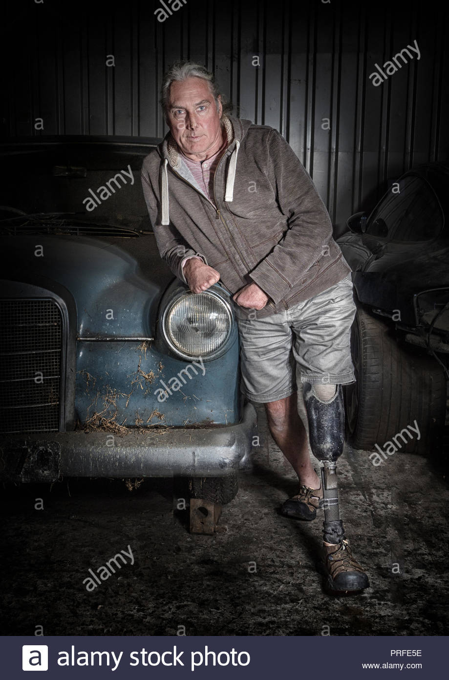 Male amputee with artificial leg and stumps for hands - Stock Image