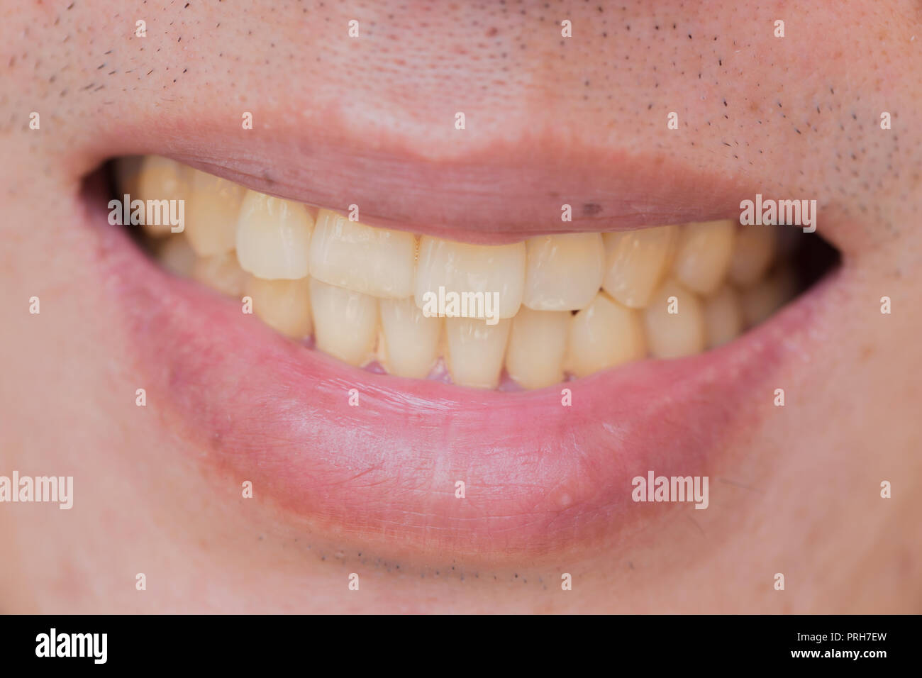 Why teeth are yellow