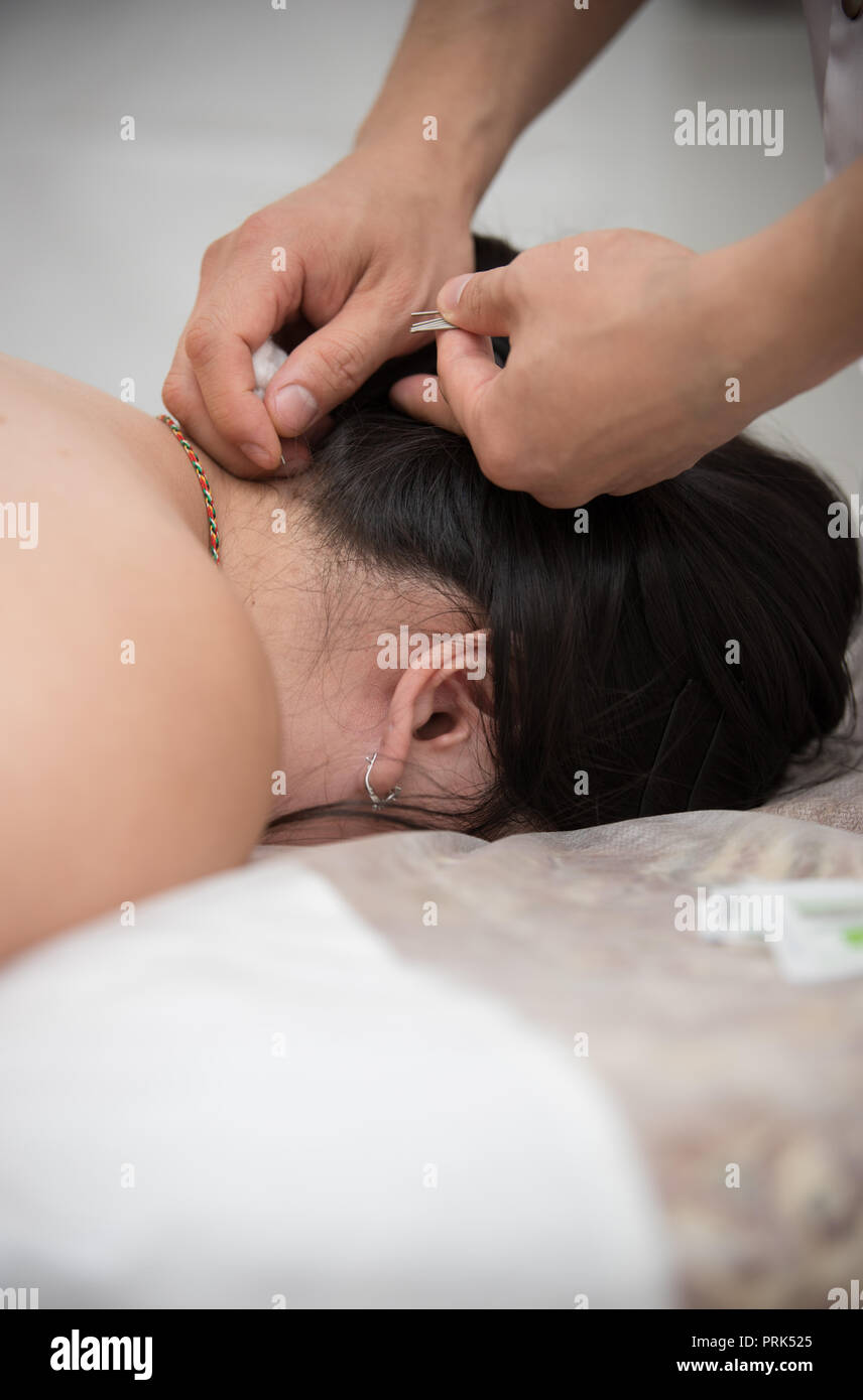 Young woman getting acupuncture treatment in therapy room Stock Photo