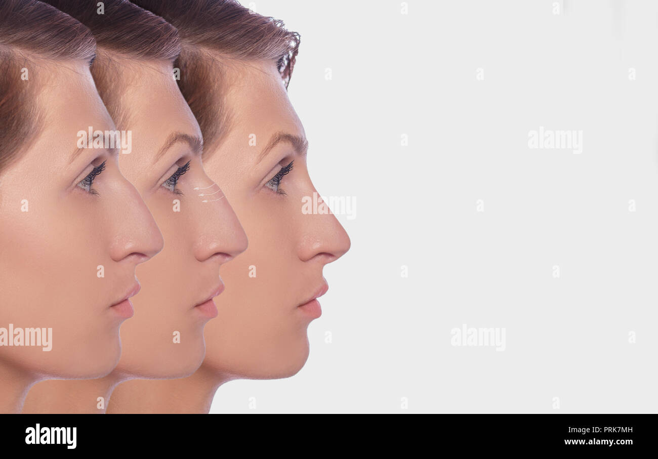 profile female before and after plastic surgery on her nose - Stock Image