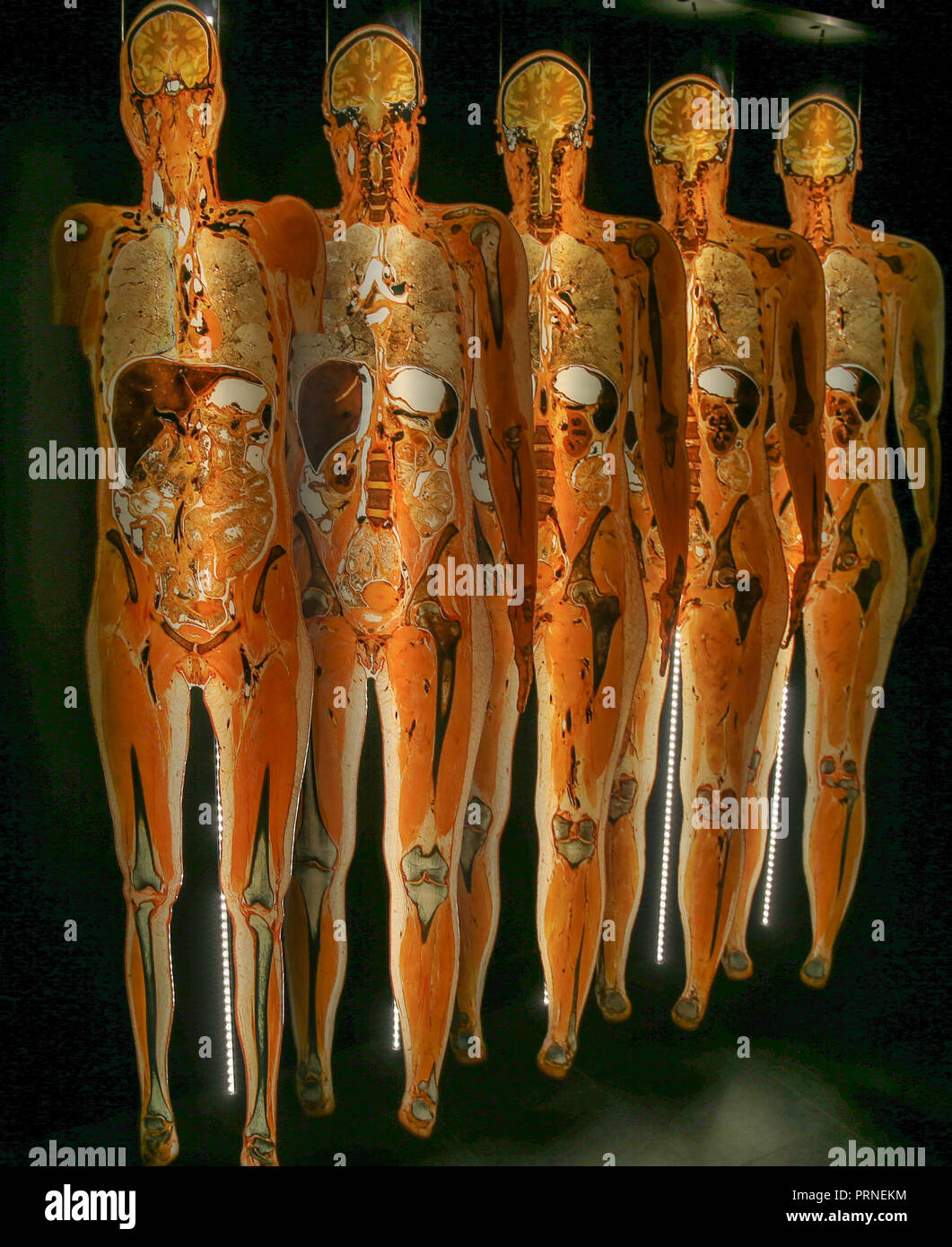 Gunther Von Hagen Body Worlds High Resolution Stock Photography And Images Alamy
