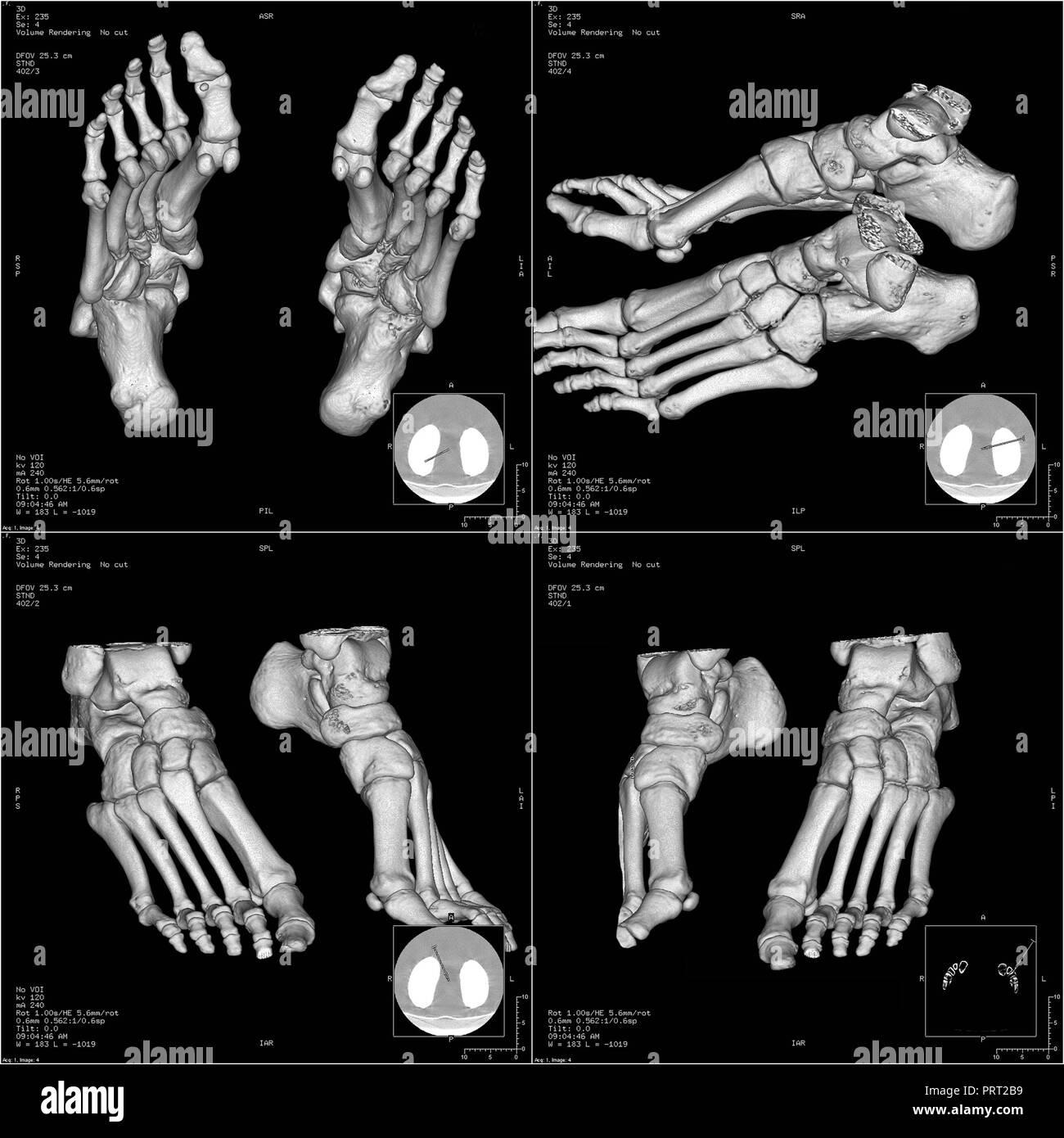 Bones of foot in three-dimensional CT - Stock Image