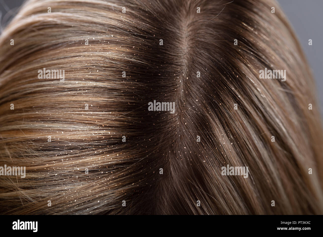 Close-up Of A Dandruff In Woman's Blonde Hair - Stock Image
