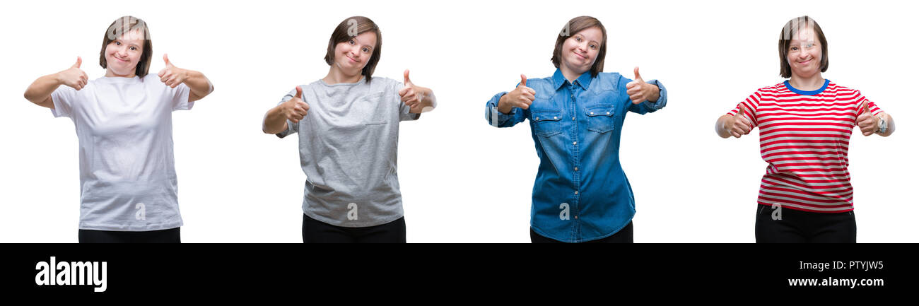 Collage of down sydrome woman over isolated background success sign doing positive gesture with hand, thumbs up smiling and happy. Looking at the came - Stock Image