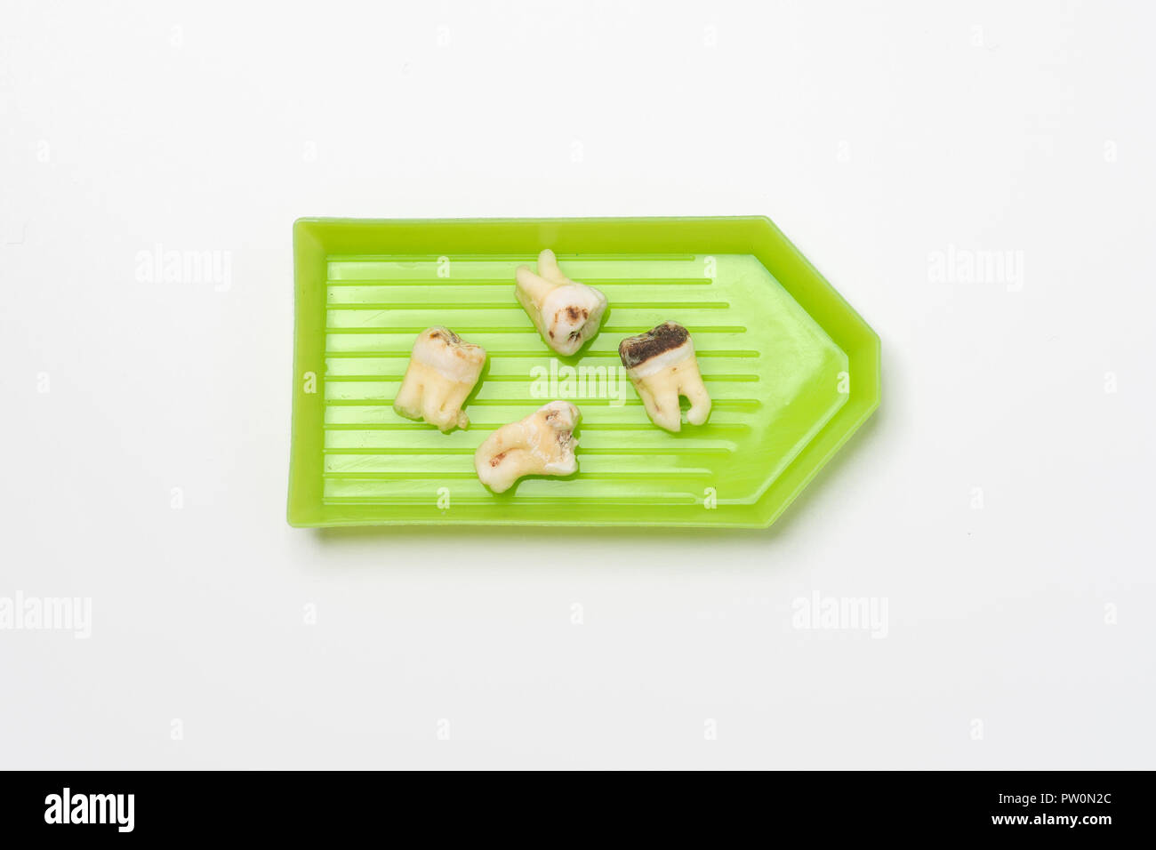 pulled out bad molars human teeth close up on white background - Stock Image