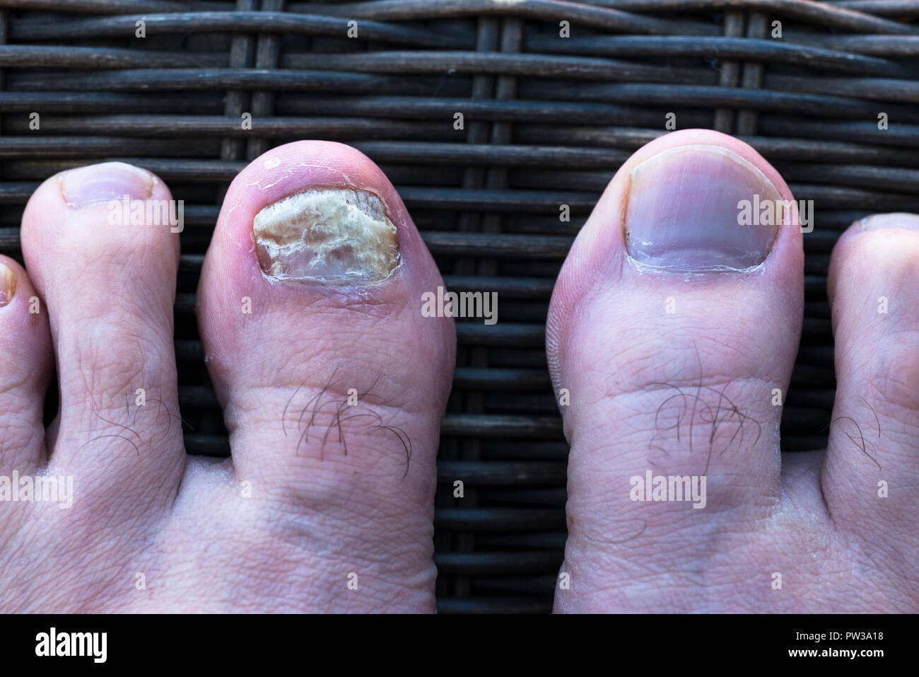 Fungal nail infection on male toe. - Stock Image
