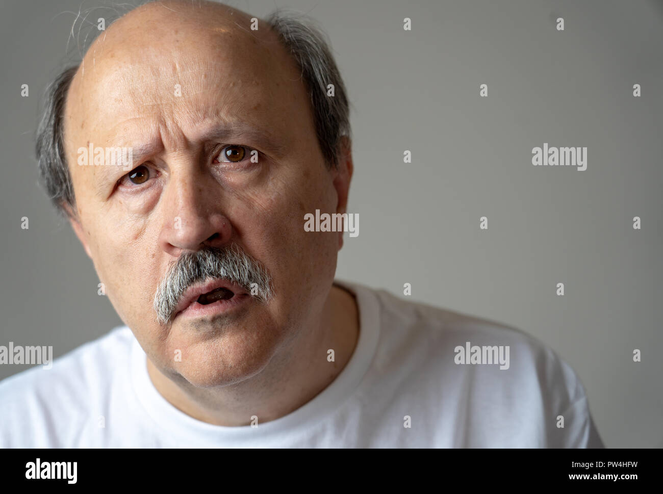 Close up portrait of senior man looking confused and lost suffering from dementia, memory loss or Alzheimer in Mental health in Older Adults and later - Stock Image