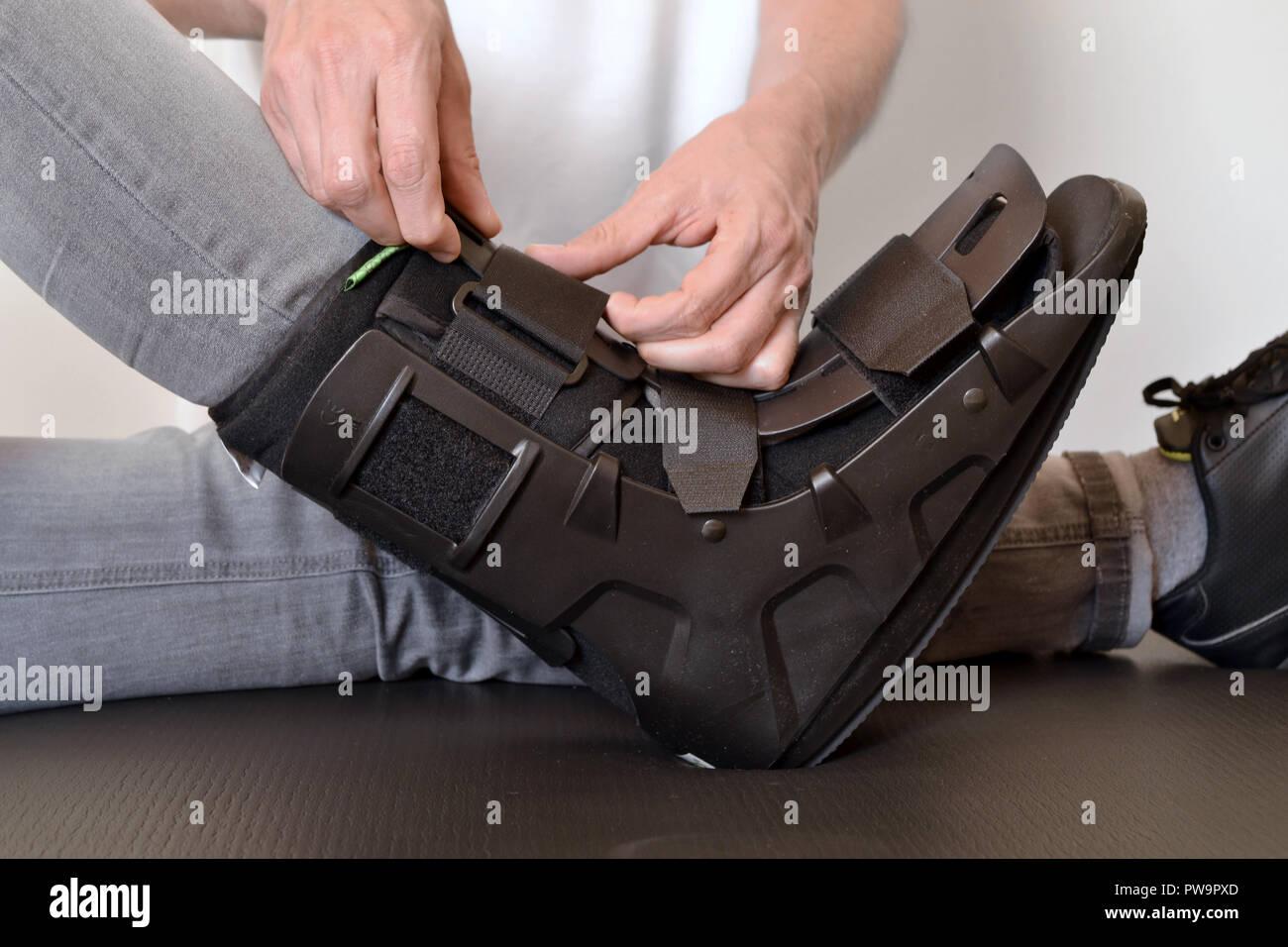 orthosis physiotherapist adjusting create gibs splint rails - Stock Image