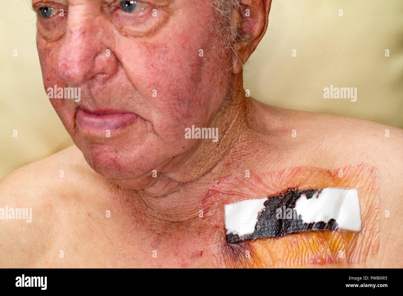 Man recovering after having a pacemaker fitted - Stock Image