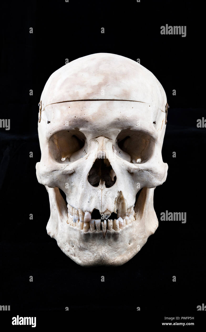 Human Skull Used For Teaching Anatomy To Medical Students With The