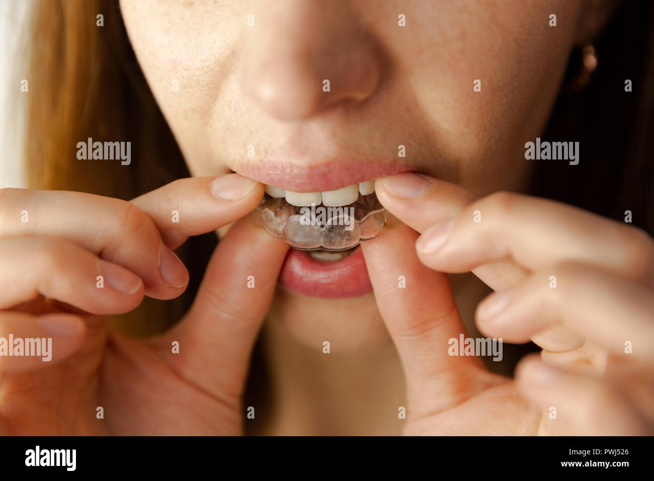 young woman puts transparent aligner for dental treatment Stock Photo