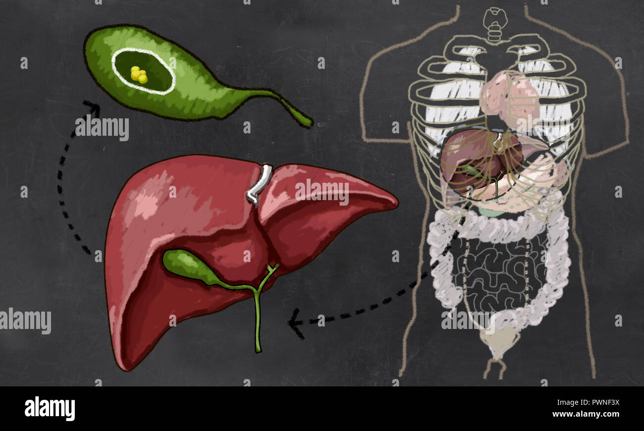 Gallstones Illustration with Torso, Liver and Gall bladder to show Size and Details Stock Photo
