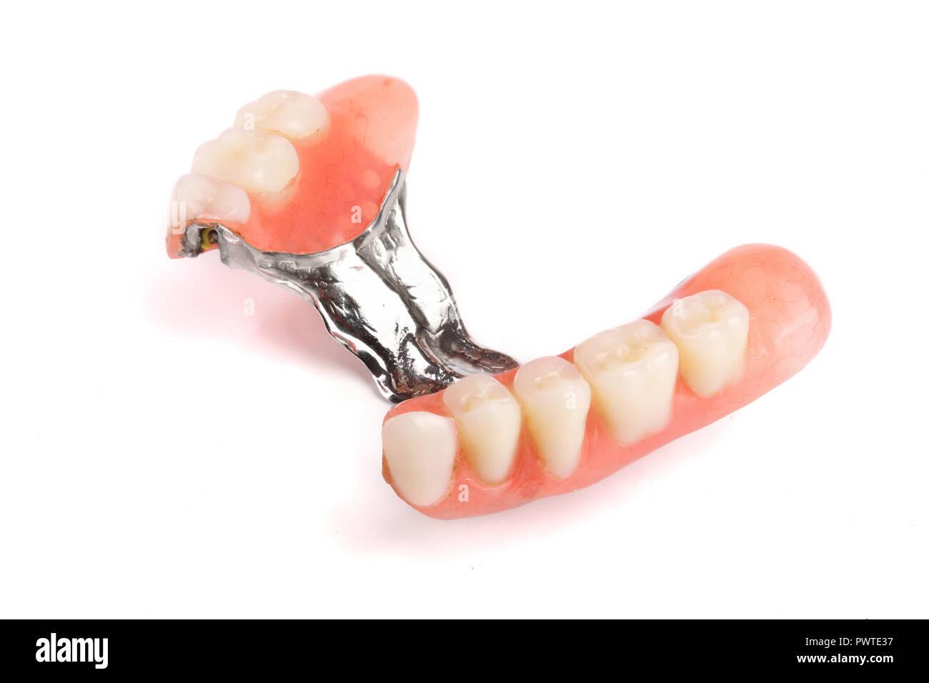 Clasp prosthesis with lock fixation isolated on white background macro. - Stock Image