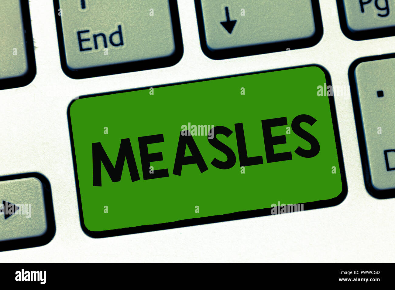 Word writing text Measles. Business concept for Infectious viral disease causing fever and a red rash on the skin. - Stock Image
