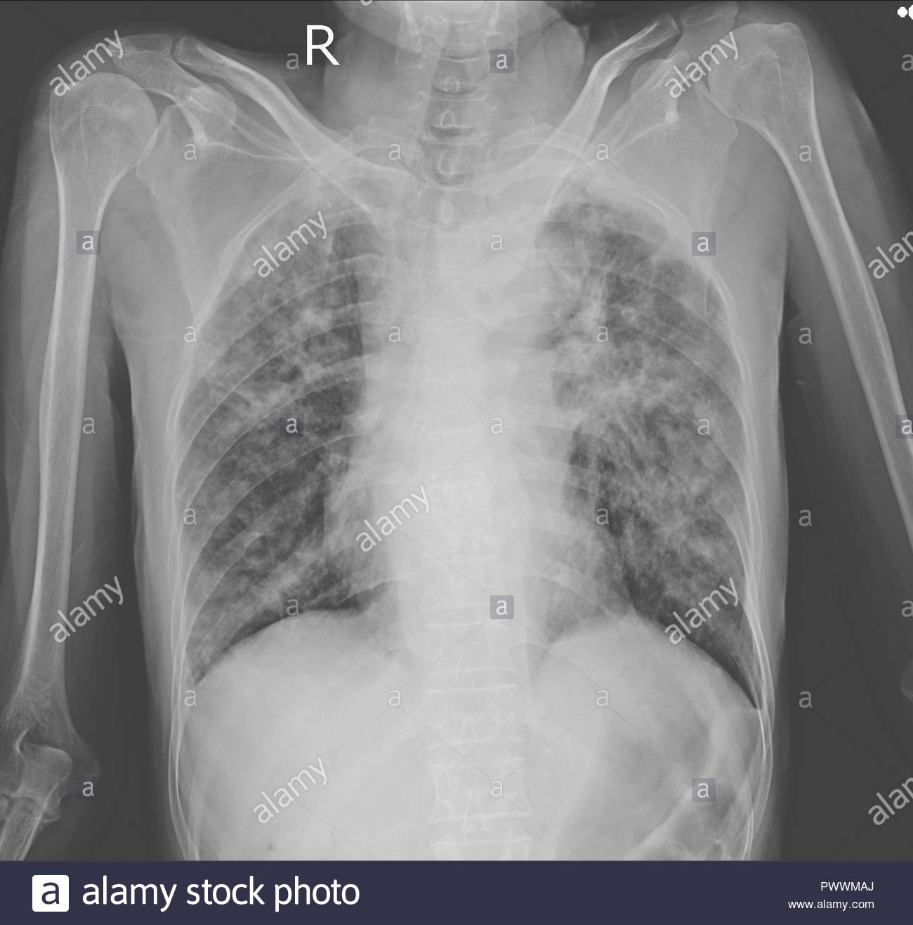 Chest x-ray showing Interstitial pulmonary infiltration with dry cavities both lungs.Impression : Pulmonary tuberculosis. - Stock Image