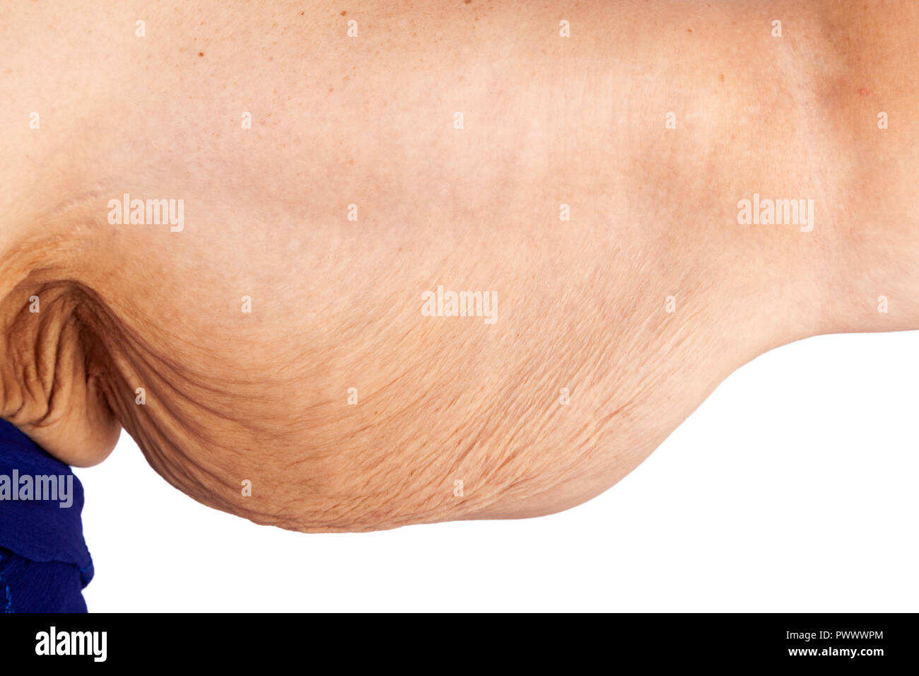 Middle Aged Woman With Saggy Skin After Extreme Weight Loss Skin