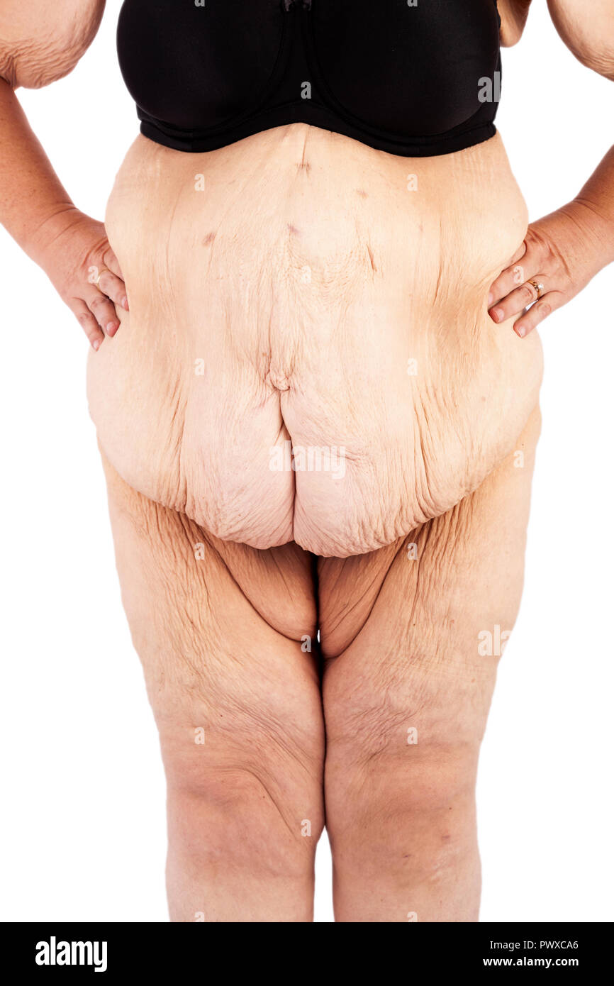 Middle Aged Women With Saggy Skin After Extreme Weight Loss Stock