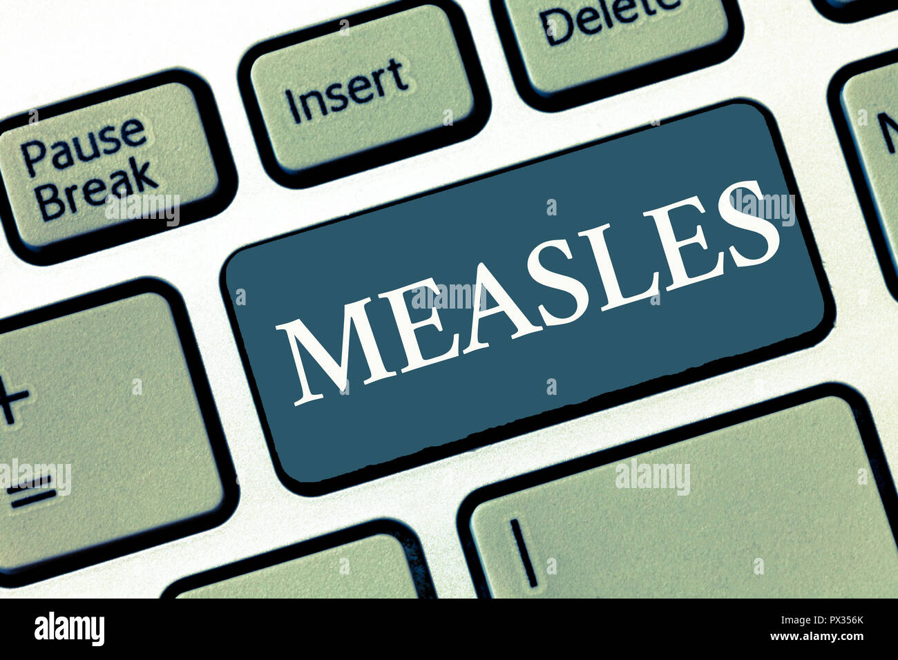 Writing note showing Measles. Business photo showcasing Infectious viral disease causing fever and a red rash on the skin. - Stock Image