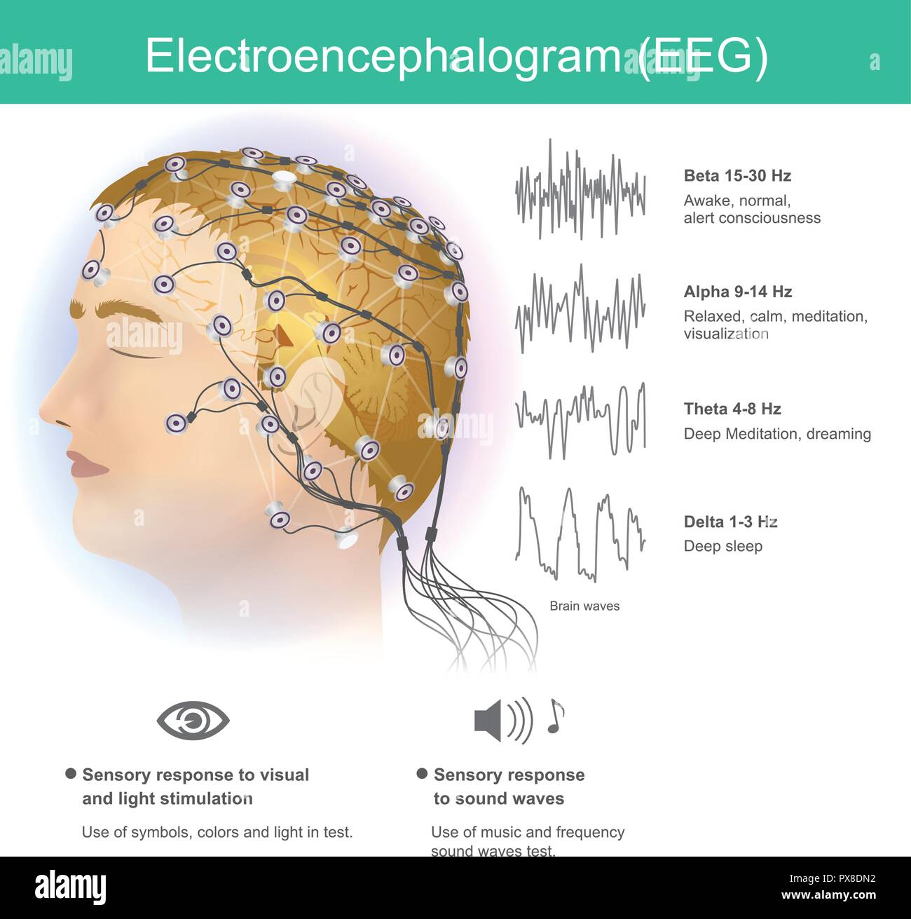 The use of electrodes to read small electromagnetic waves from the human brain. - Stock Image