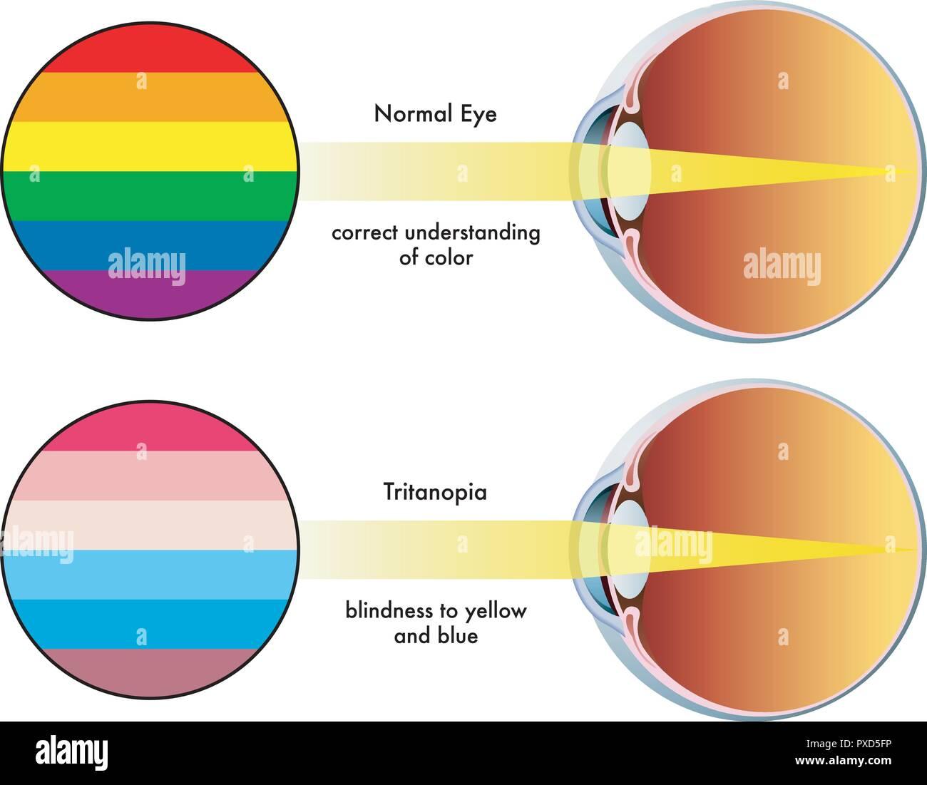 color blind eye diagram wiring diagram bookmark eye diagram coloring page eye diagram color #5
