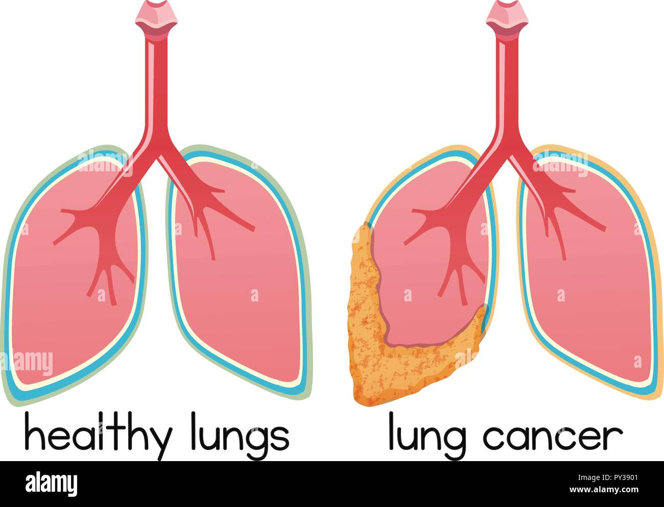 A Cartoon of Lung Condition illustration - Stock Vector