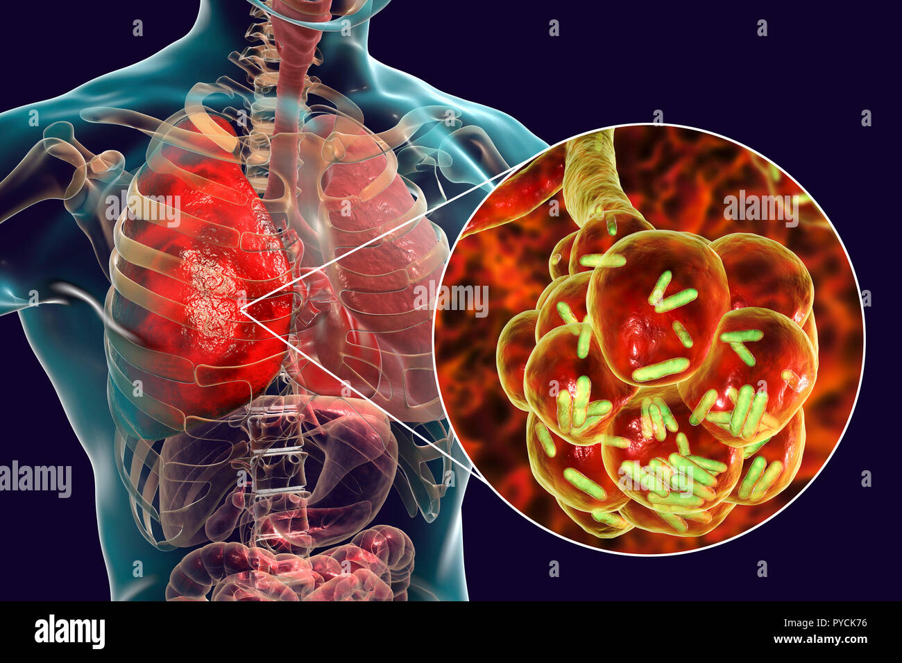 Bacterial pneumonia. Computer illustration of rod-shaped bacteria (bacilli) inside the alveoli of the lungs, causing a lower respiratory tract infection. This is more generally known as pneumonia, though that term can also be reserved for specific types of infection. Severe lung infections are diagnosed by X-ray and treated by antibiotics. The alveoli are the site of gaseous exchange between the air in the lungs and the blood. - Stock Image