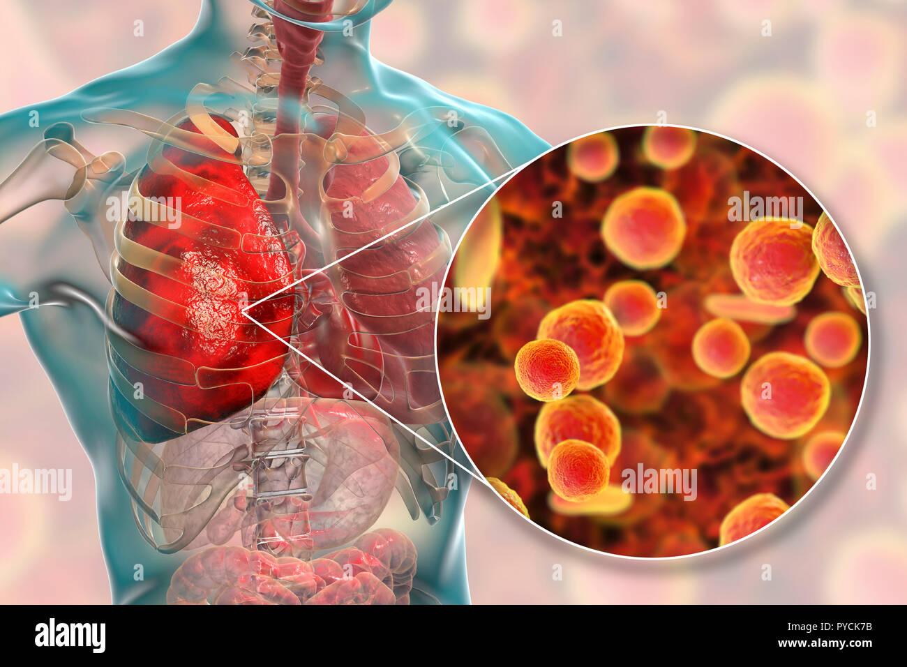 Pneumonia caused by Mycoplasma pneumoniae bacteria, conceptual computer illustration. Mycoplasmas are the smallest cellular organisms known (diameter  - Stock Image