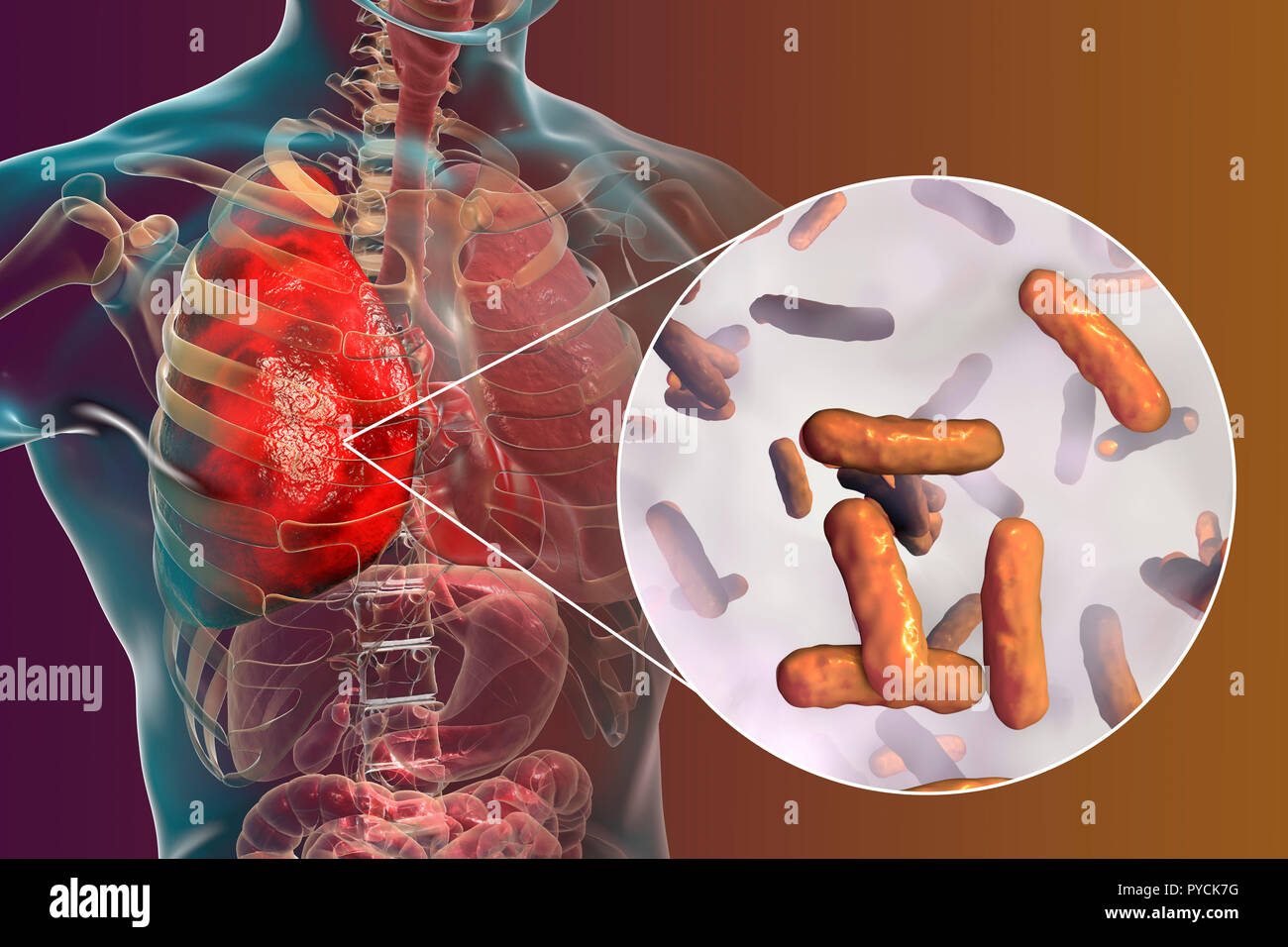 Pneumonia caused by bacteria Pseudomonas aeruginosa, computer illustration. P. aeruginosa is a Gram-negative bacterium which causes multiple antibiotic resistant nosocomial (hospital-acquired) infections of different location, including pneumonia, osteomyelitis, peritonitis and wound infections. - Stock Image
