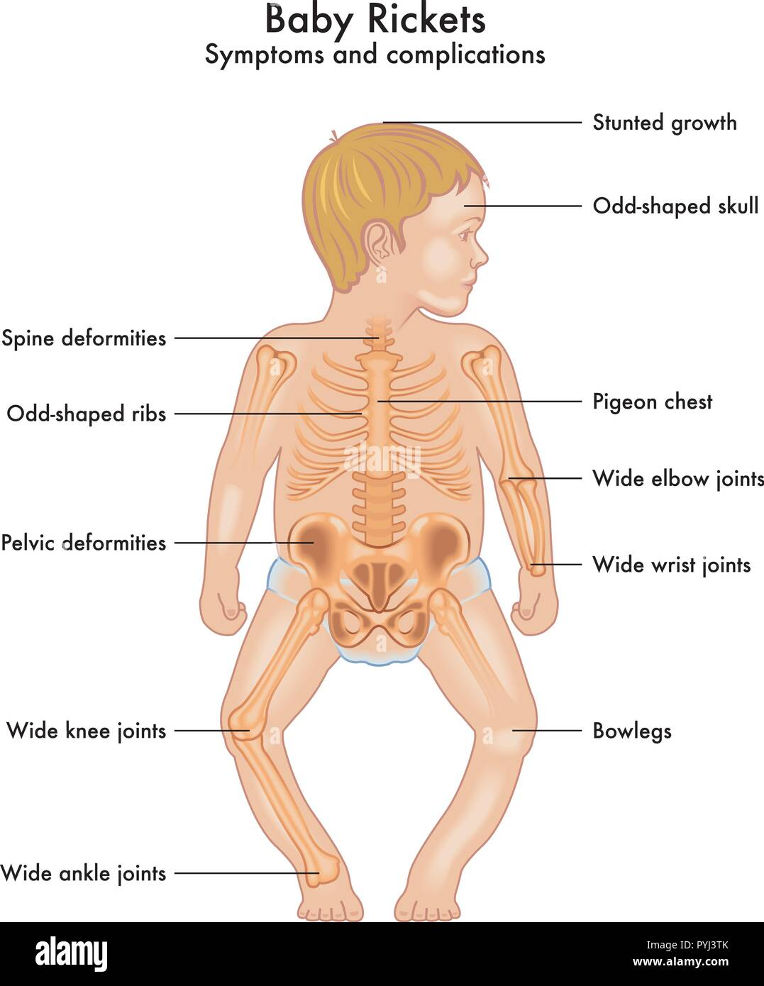 A vector illustration of the anatomy of a child with rickets symptoms - Stock Image