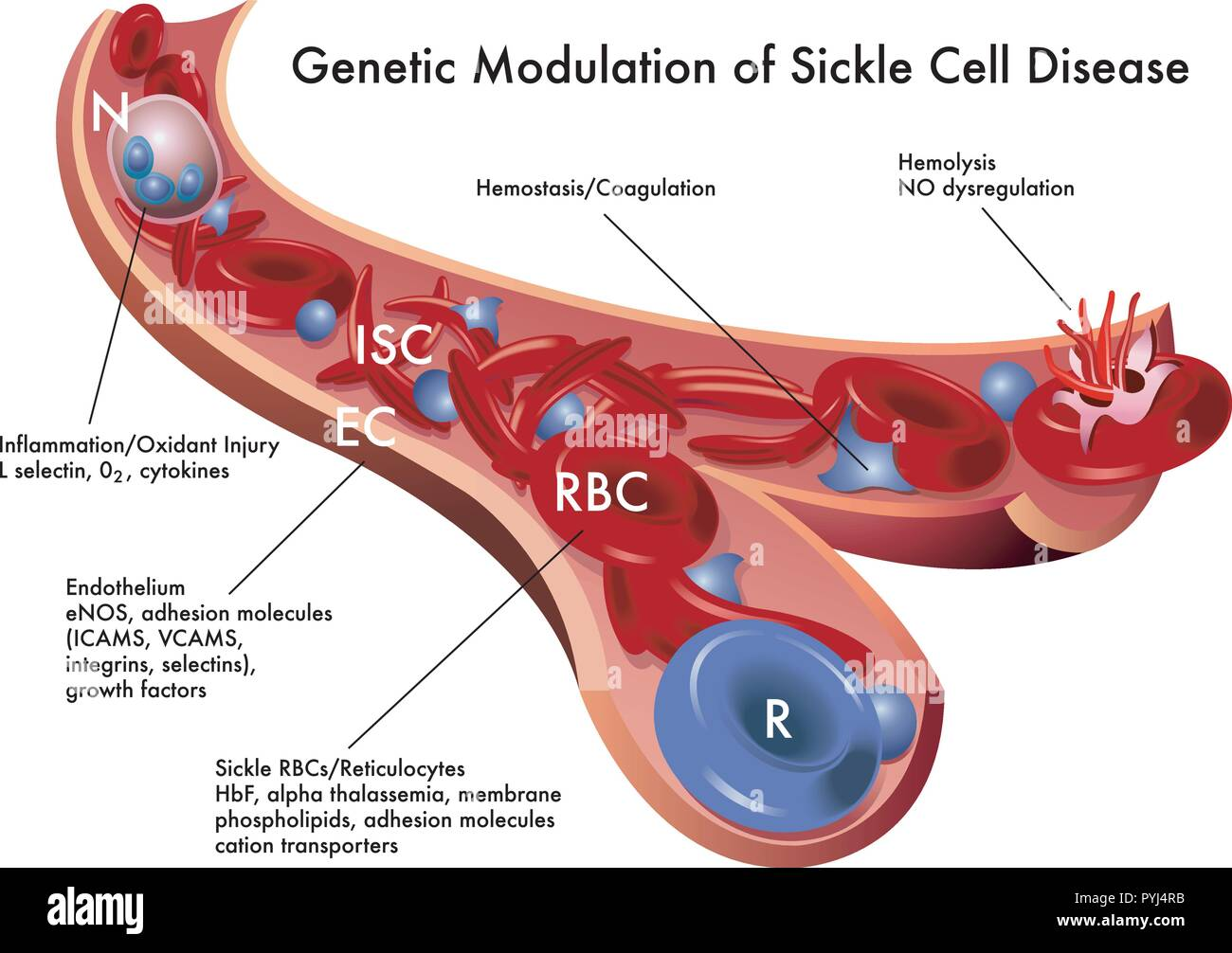 medical illustration of the genetic modulation of sickle cell disease - Stock Image