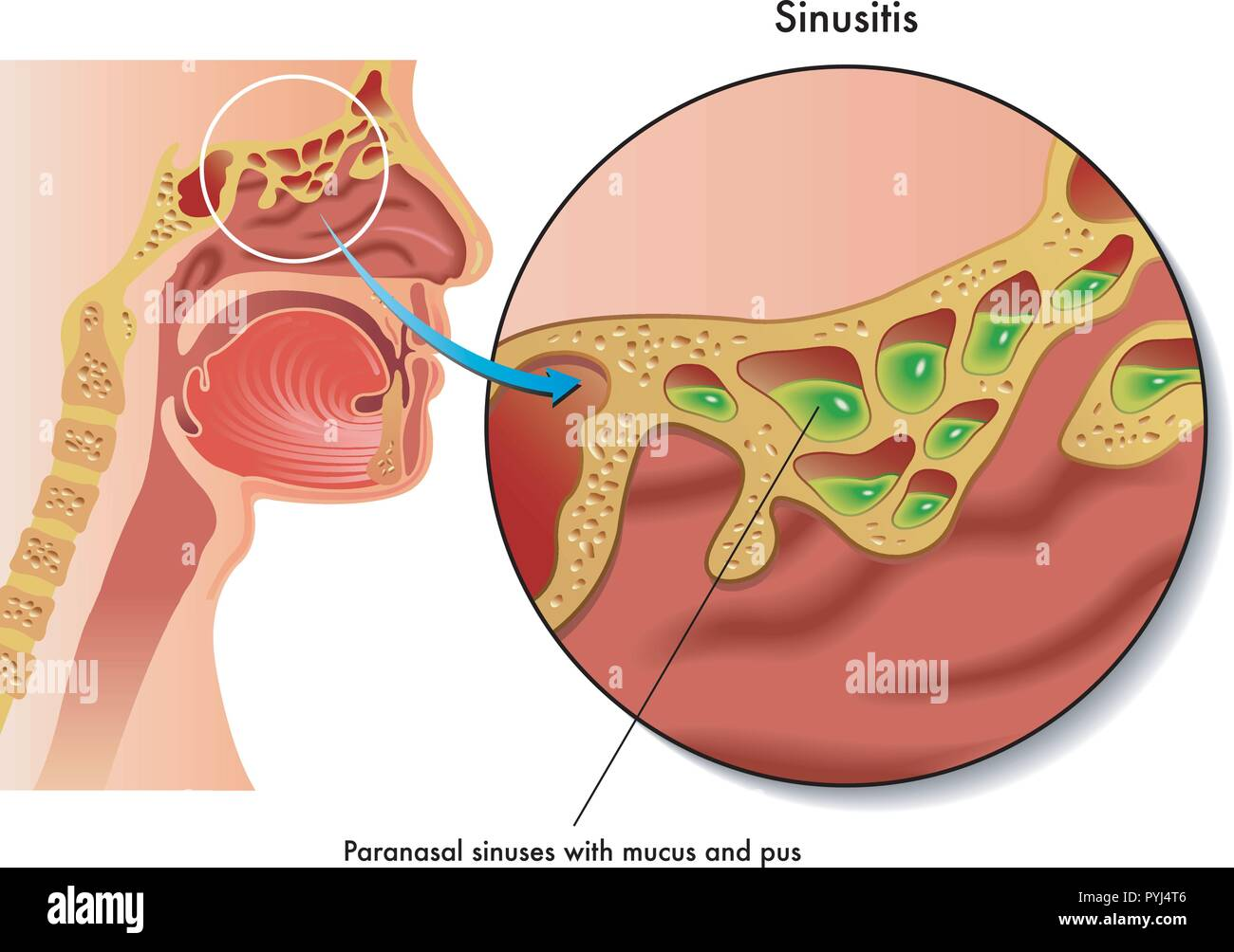 medical illustration of the effects of sinusitis - Stock Image