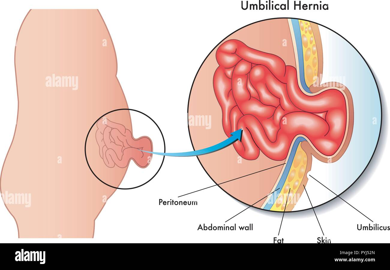 Medical Illustration Of The Consequences Of Umbilical Hernia Stock