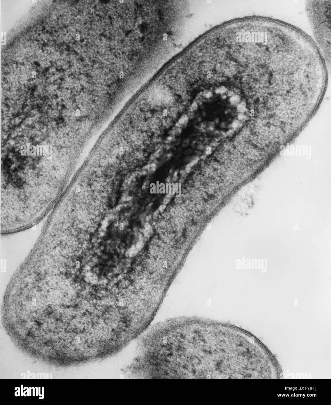 Electron micrograph cross section of Escherichia coli bacteria - Stock Image