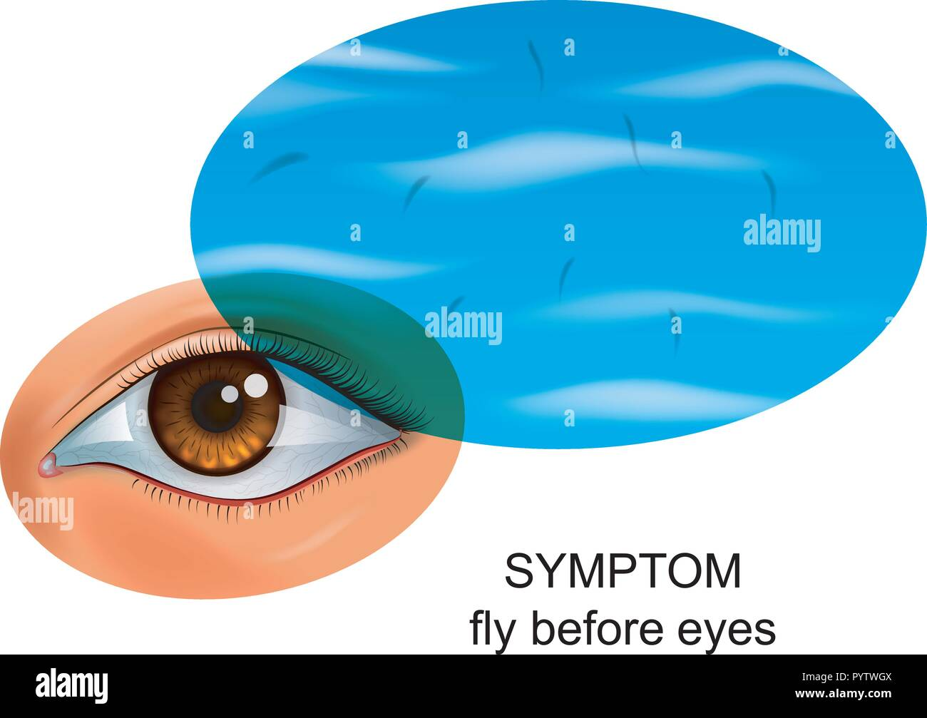 vector illustration of a fly in front of eyes. symptom of eye diseases - Stock Image