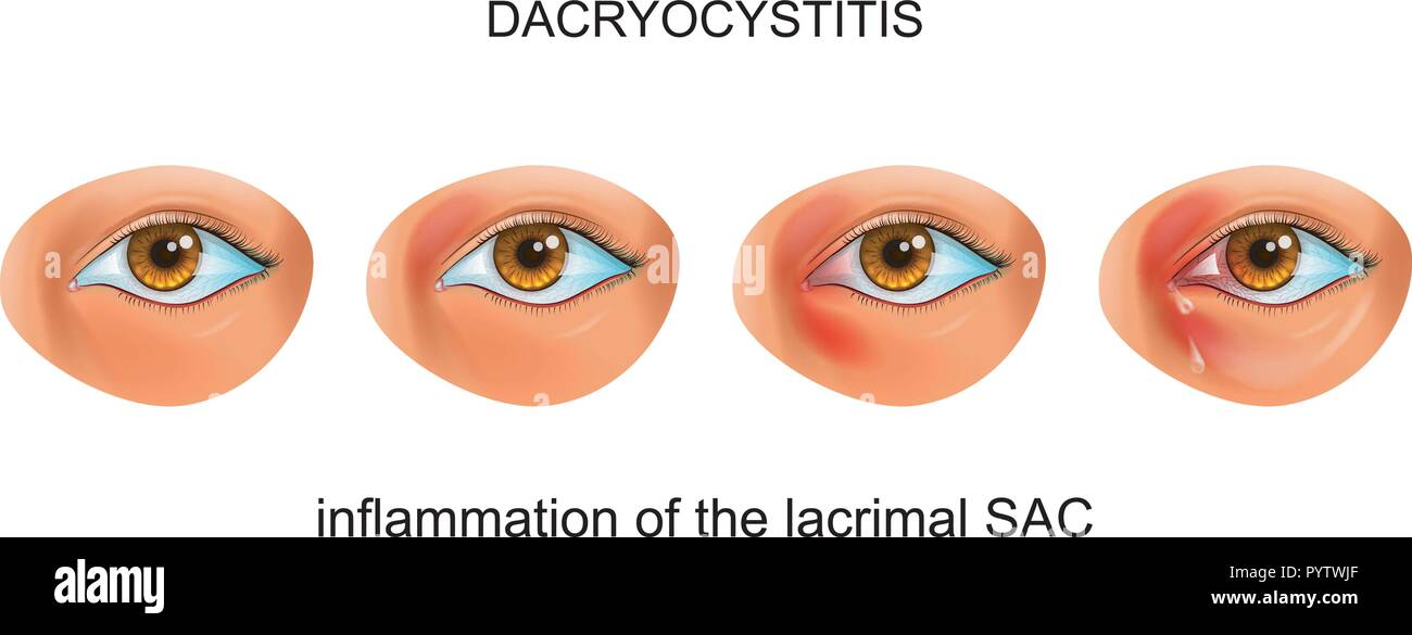 vector illustration of inflammation of the tear SAC of the eye. dacryocystitis - Stock Image