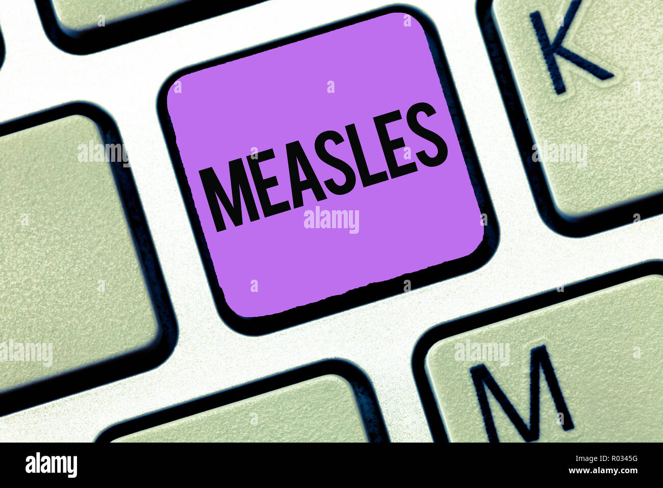 Conceptual hand writing showing Measles. Business photo showcasing Infectious viral disease causing fever and a red rash on the skin. - Stock Image