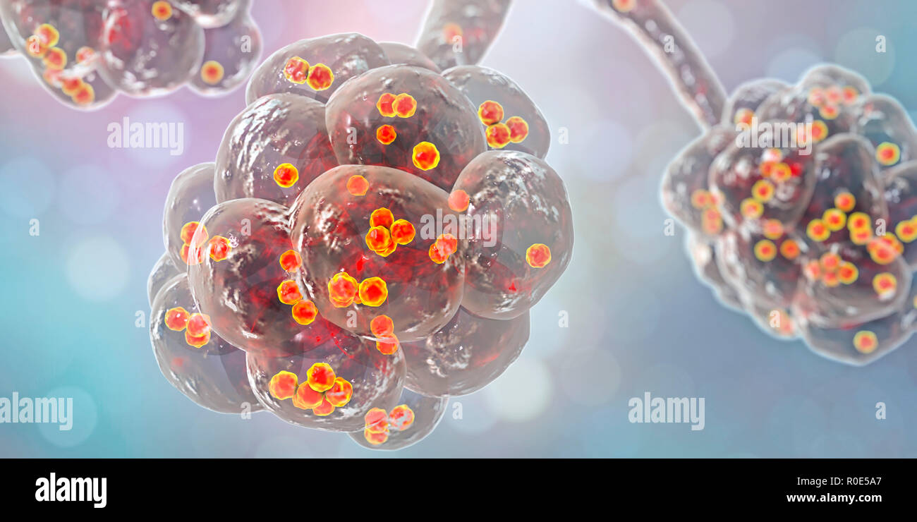 Staphylococcal pneumonia. Computer illustration of Staphylococcus aureus bacteria inside the alveoli of the lungs, causing pneumonia. - Stock Image
