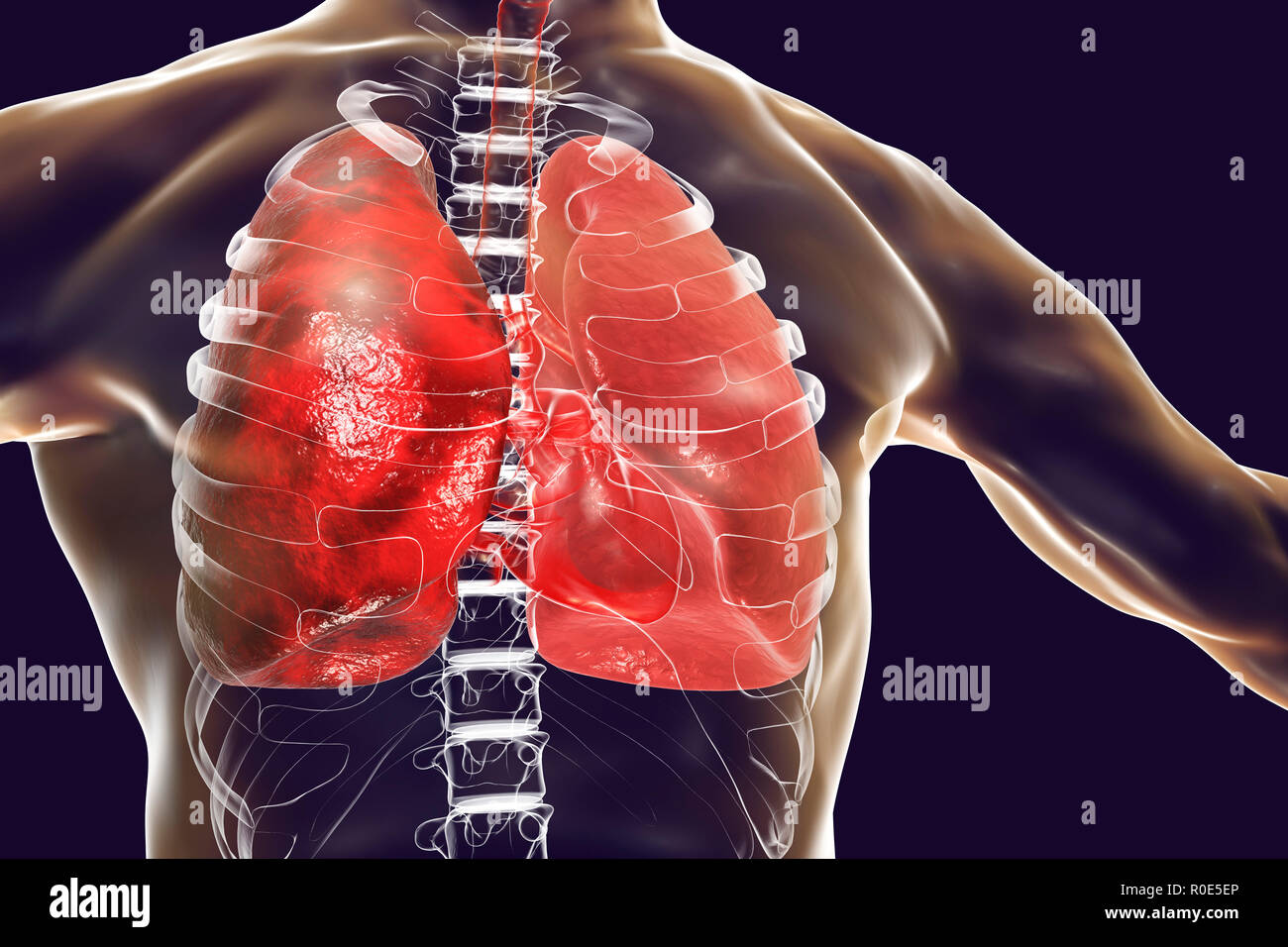 Pneumonia, illustration. Pneumonia is an inflammatory condition of the lung. - Stock Image