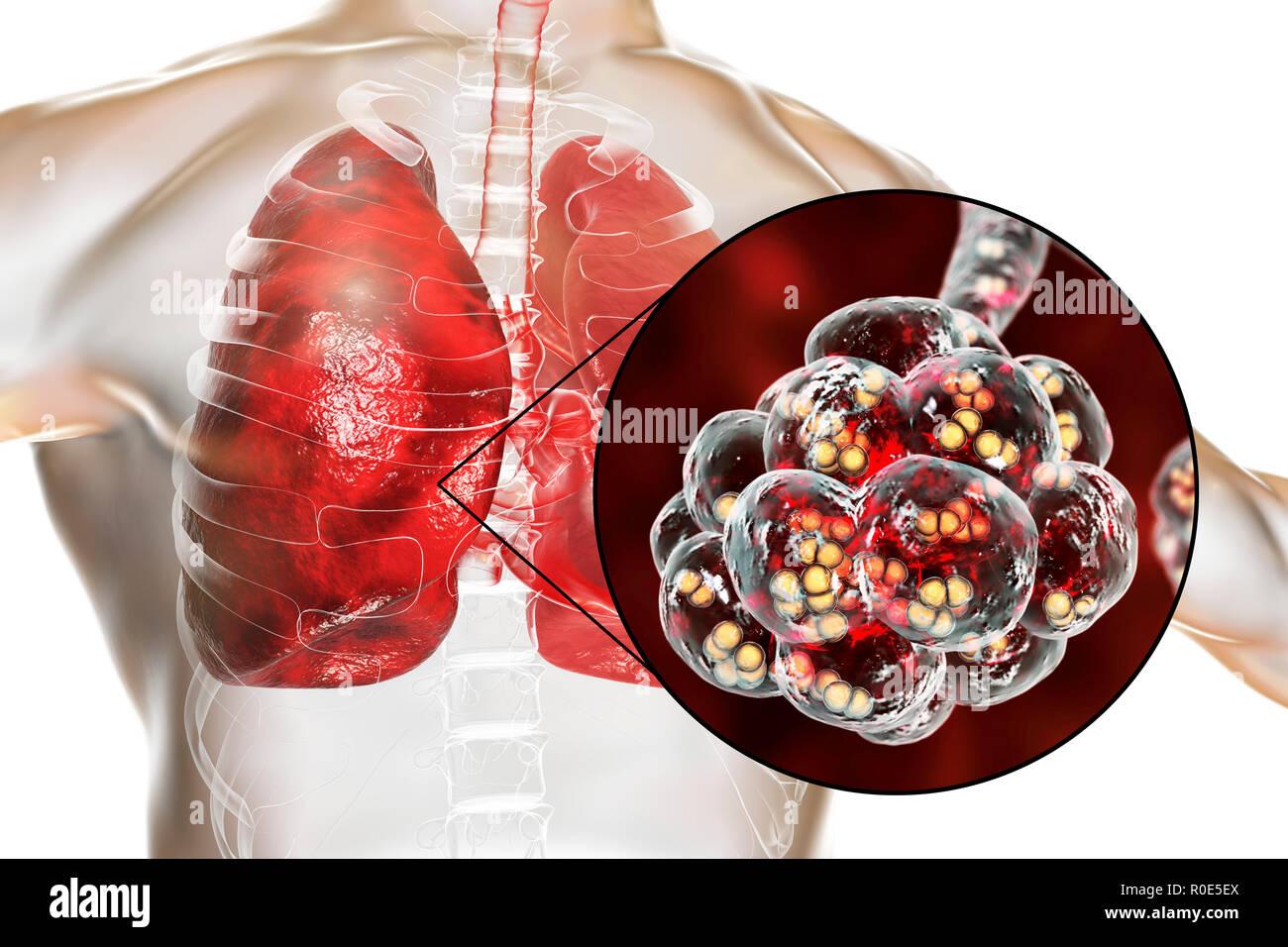 Pneumococcal pneumonia. Computer illustration of Streptococcus pneumoniae (pneumococci) bacteria inside the alveoli of the lungs, causing pneumonia. - Stock Image
