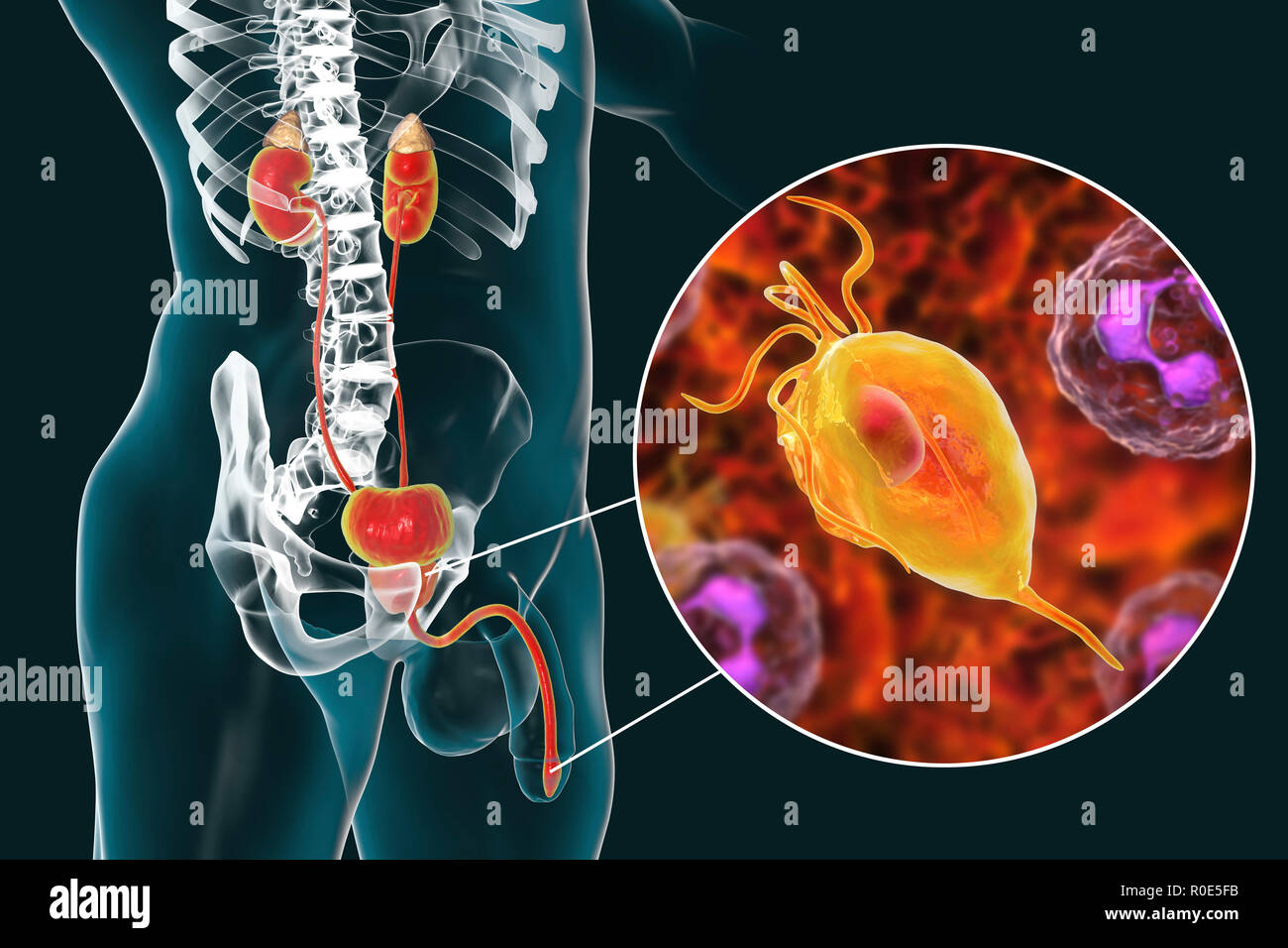 Prostatitis Stock Photos & Prostatitis Stock Images - Alamy