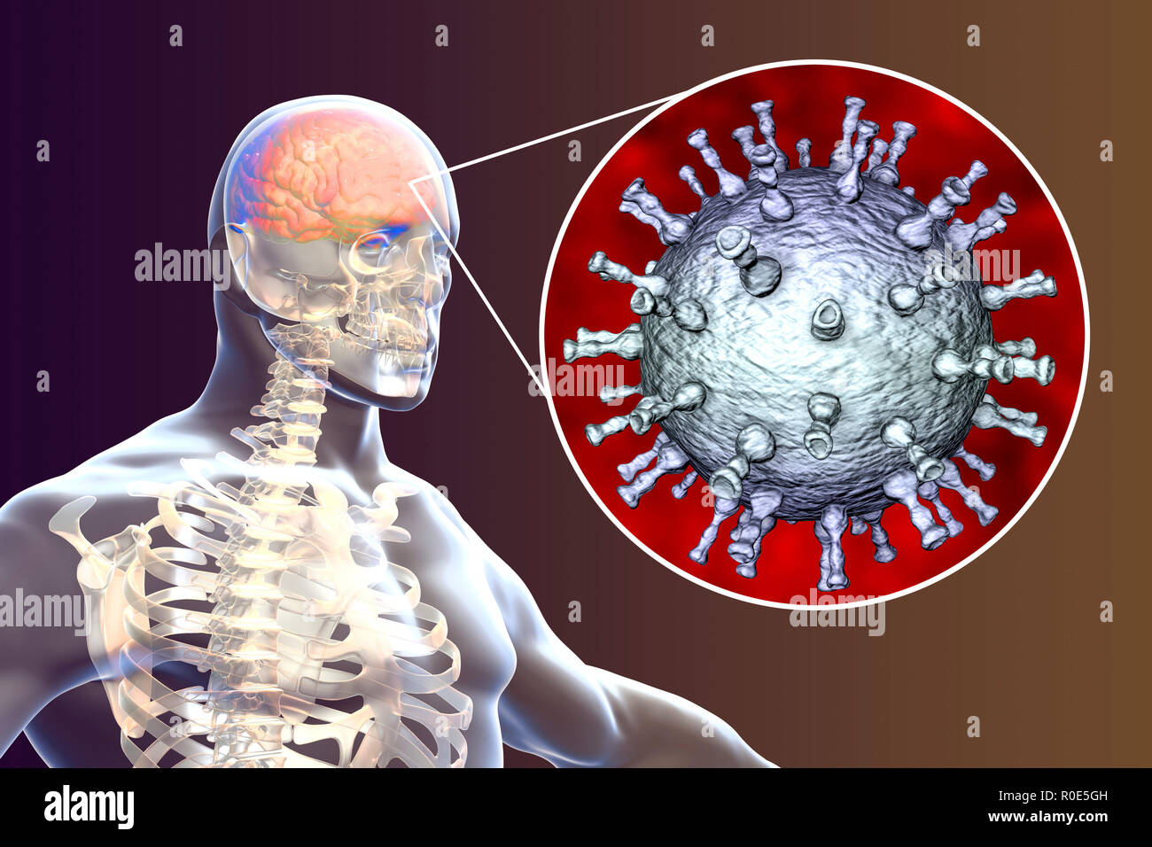Shingles Infection Stock Photos & Shingles Infection Stock Images