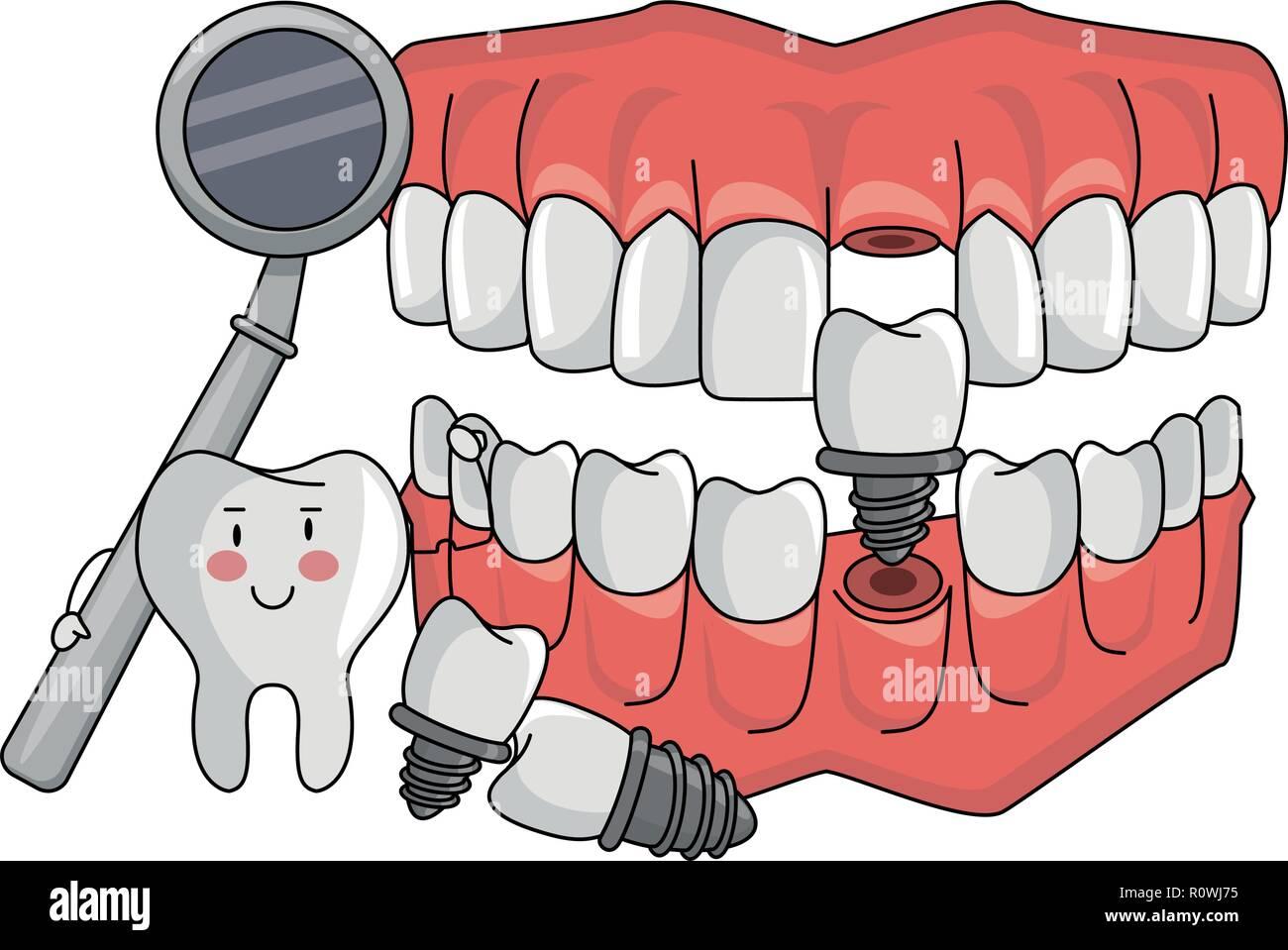 tooth fixing denture cartoon - Stock Image