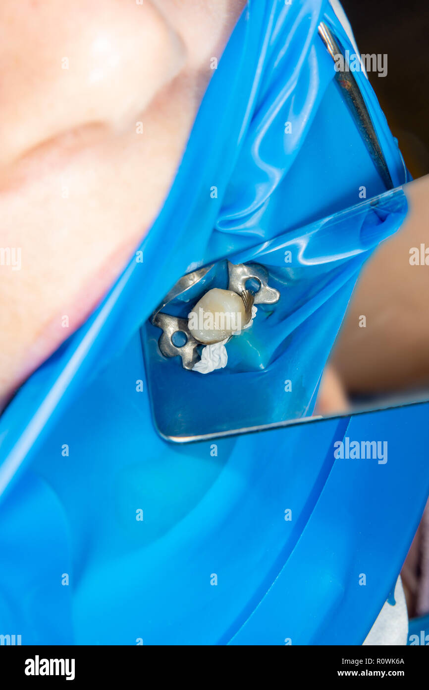 Dental treatment in the dental clinic. Rotten carious tooth close-up macro. Treatment of endodontic canals - Stock Image