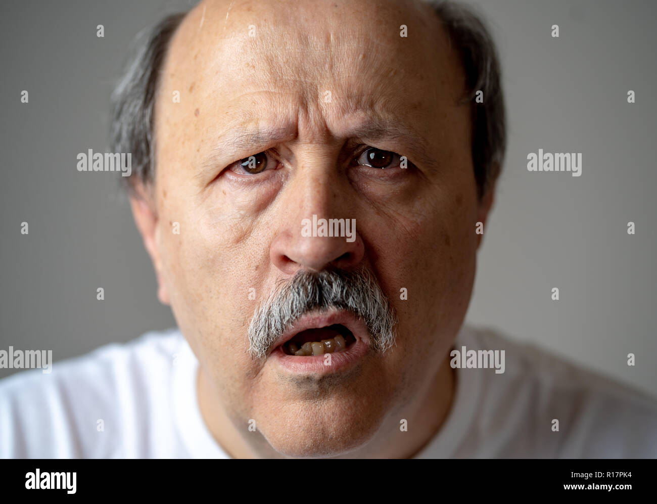 Close up portrait of senior man looking confused and lost suffering from dementia, memory loss or Alzheimer in Mental health in Older Adults and later Stock Photo