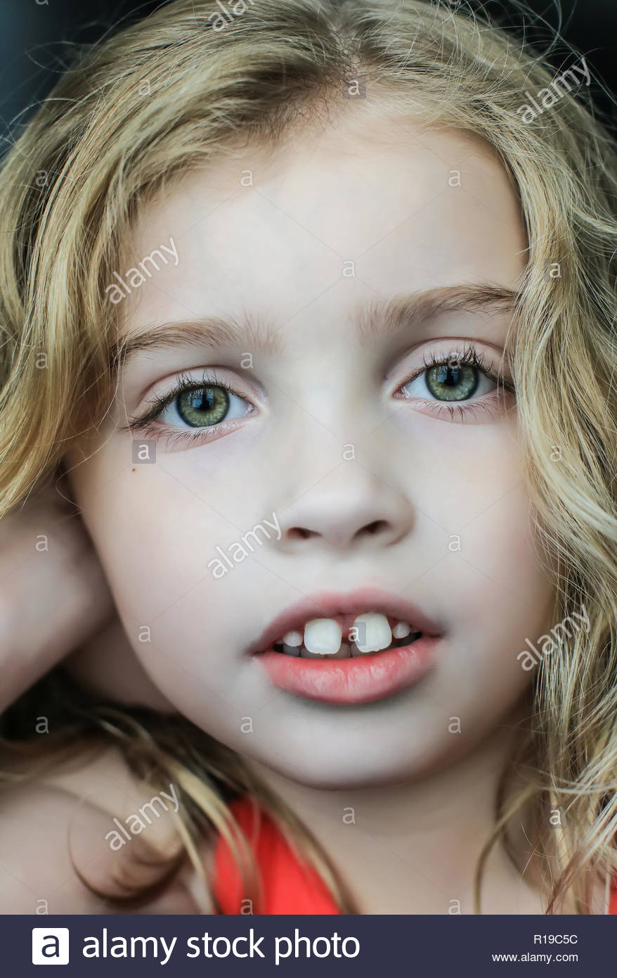 headshot of girl with autism looking at the camera seriously - Stock Image
