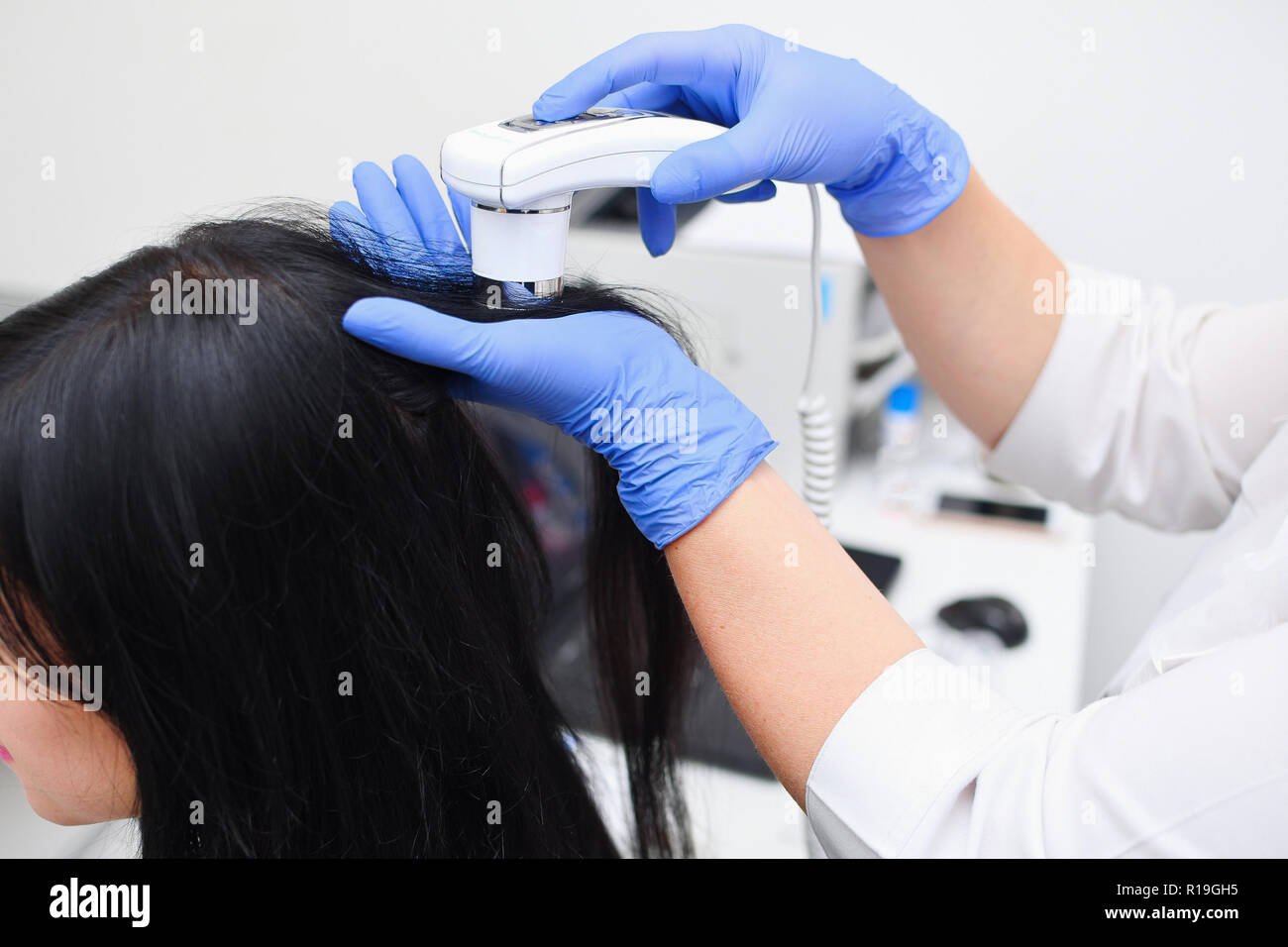 Trichoscopy of the scalp in a medical cosmetology center. Scalp hair treatment. Stock Photo