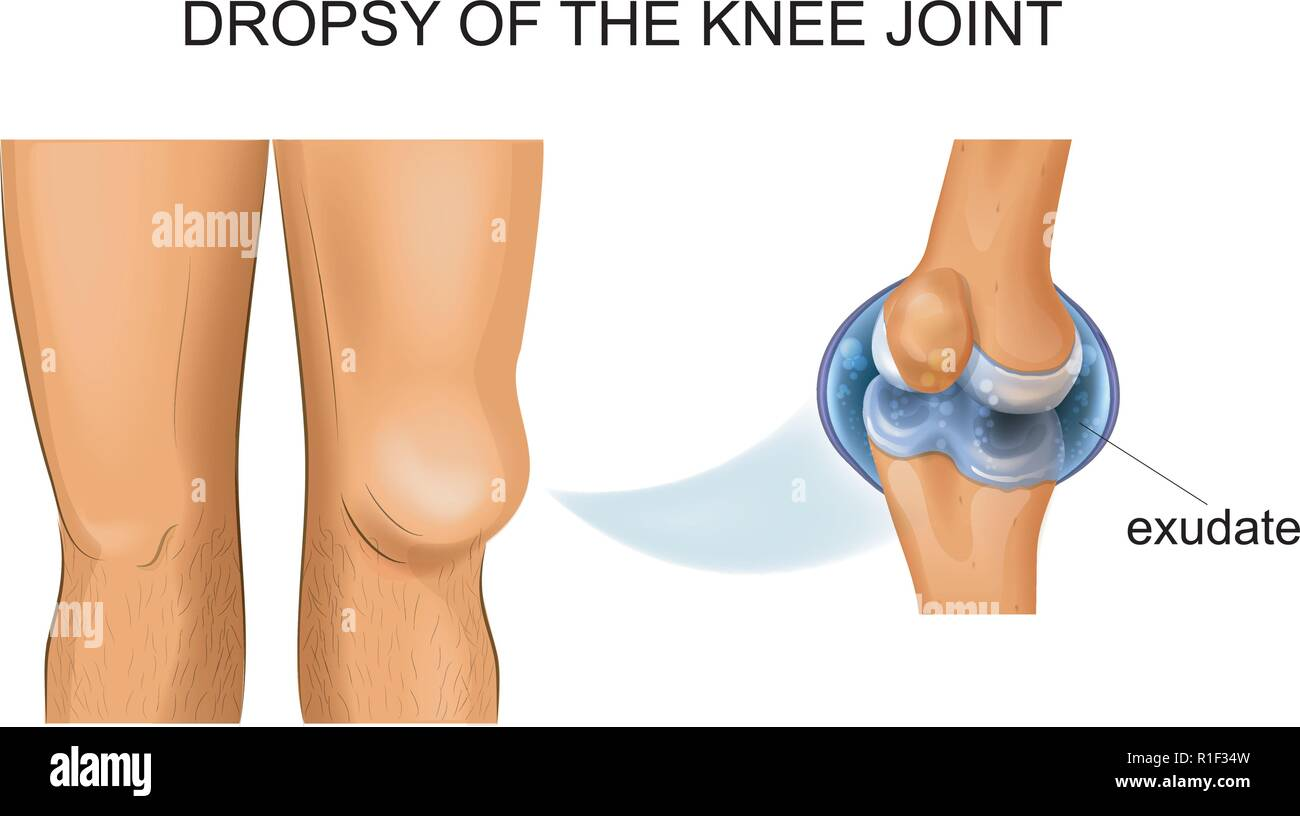 vector illustration of knee hydrarthrosis, articular dropsy - Stock Image